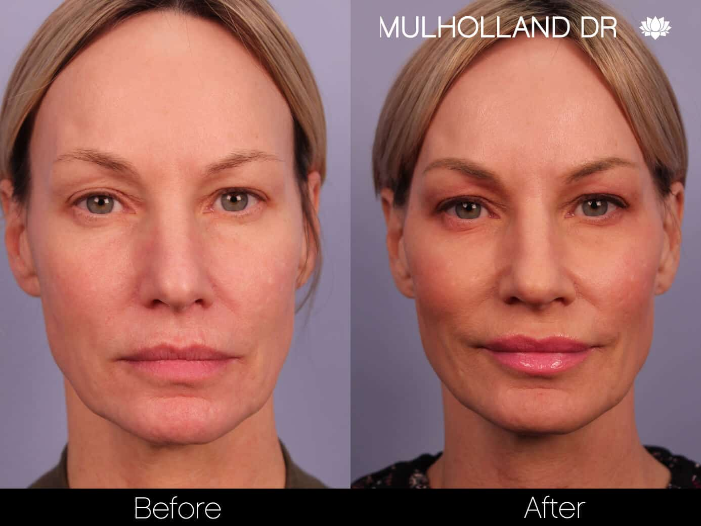 Morpheus8- Before and After Gallery - Patient Photo 1
