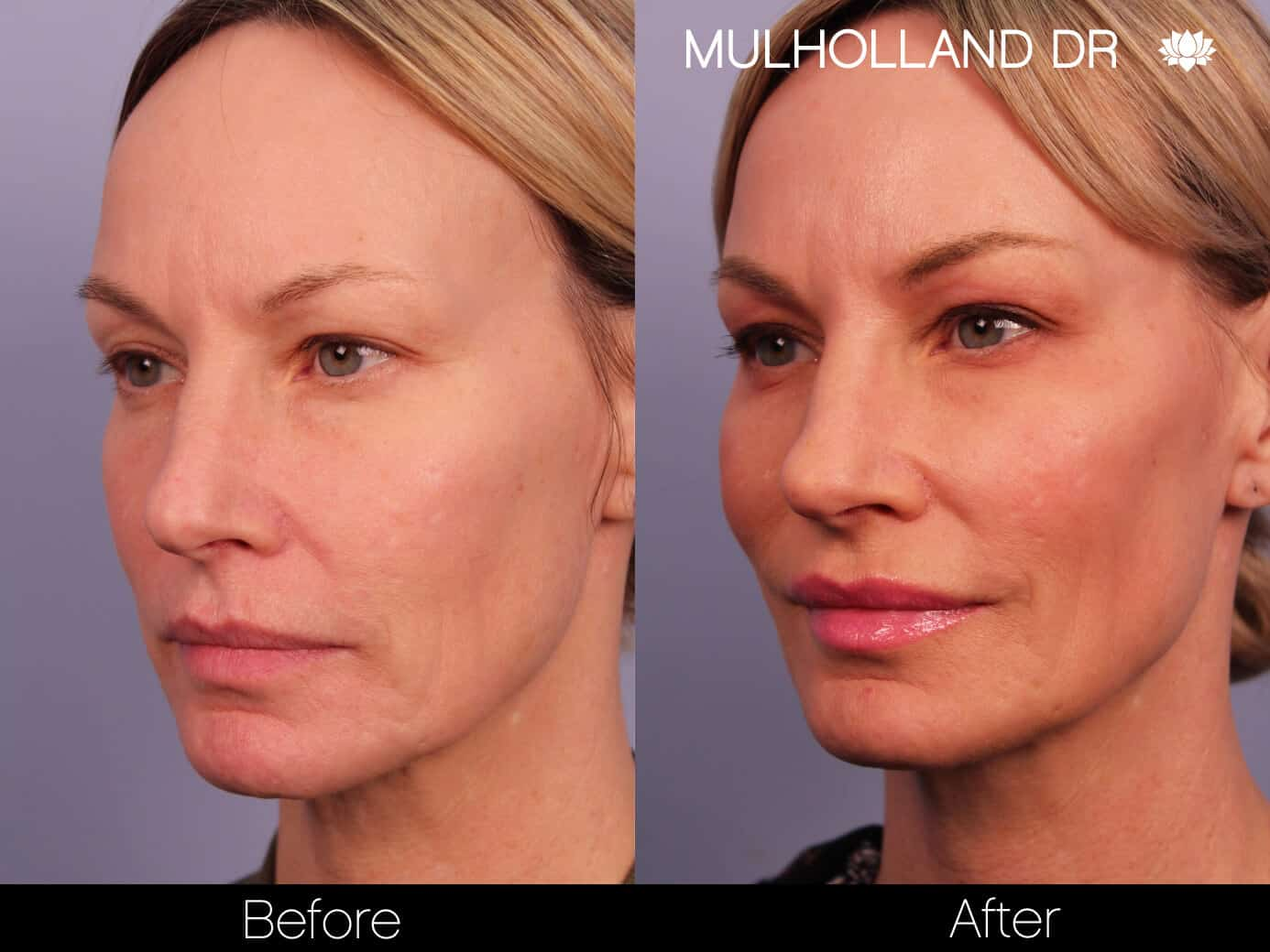 Morpheus8- Before and After Gallery - Patient Photo 2