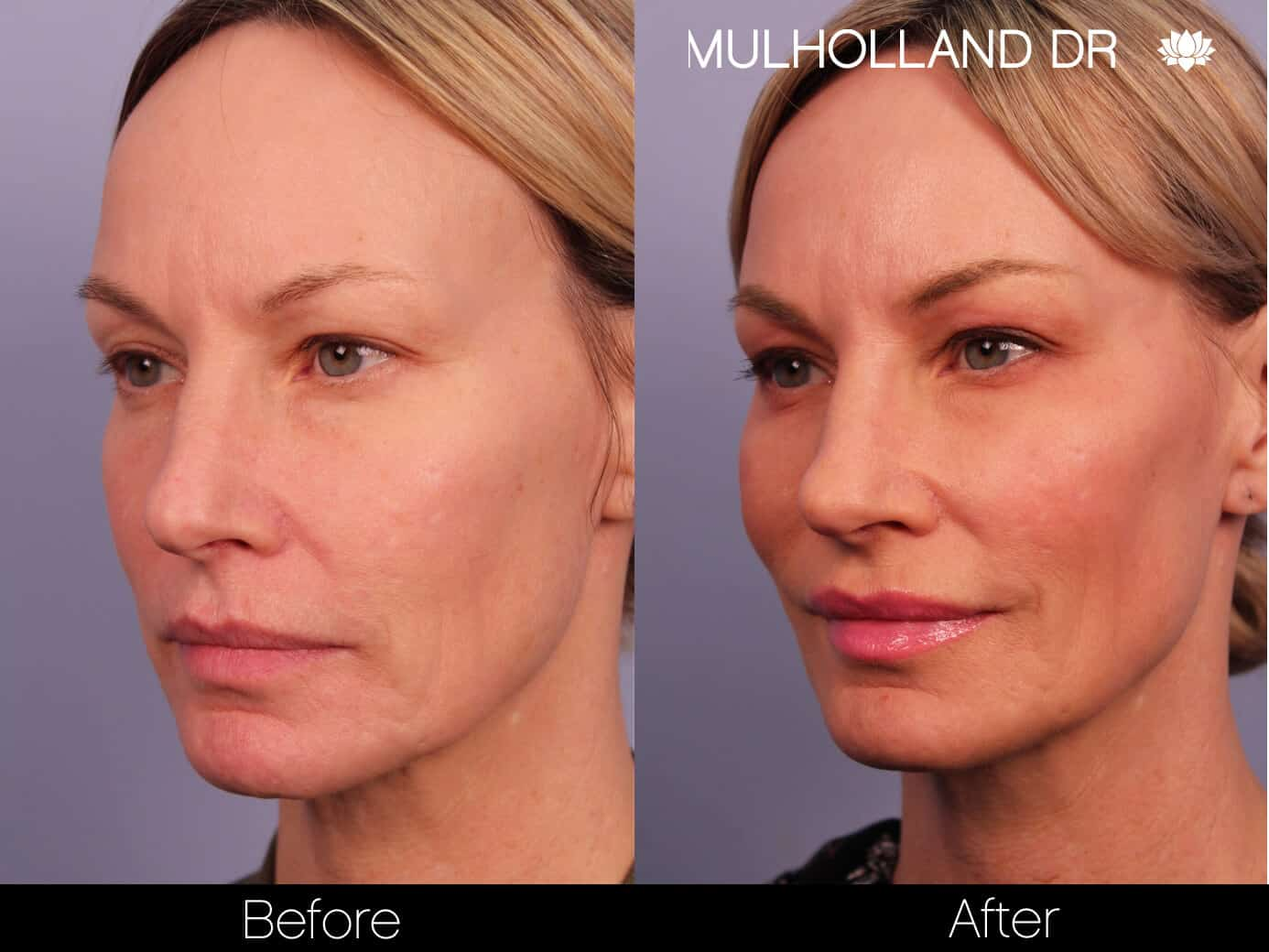 Morpheus8- Before and After Gallery - Patient Photo 3