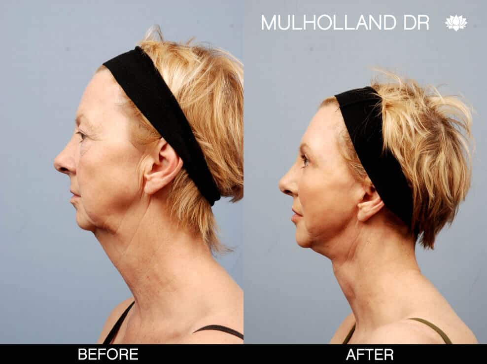 Neck Lift - Before and After Gallery - Patient Photo 1