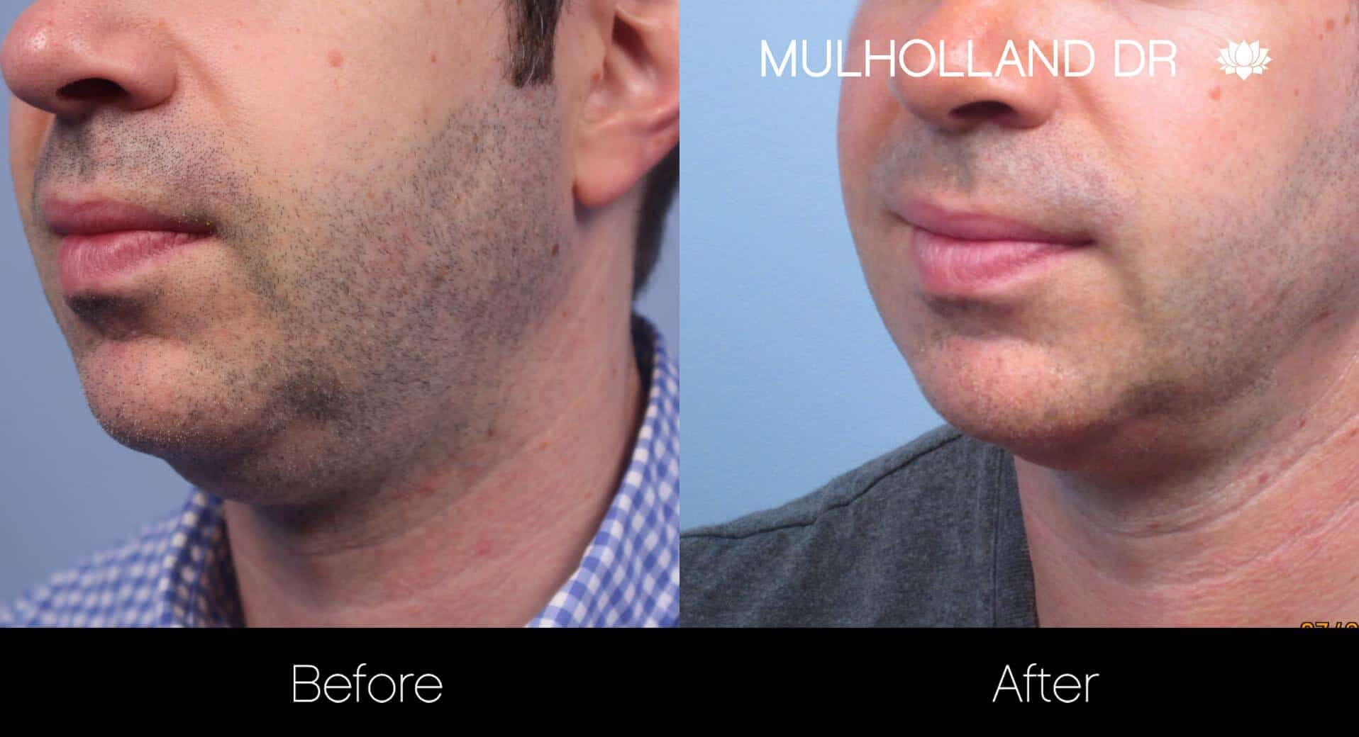 Neck Lift - Before and After Gallery - Patient Photo 100