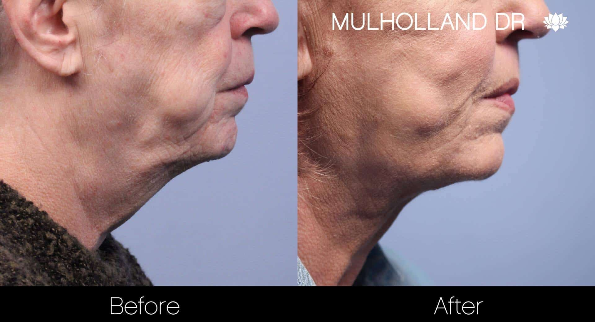 Neck Lift - Before and After Gallery - Patient Photo 104