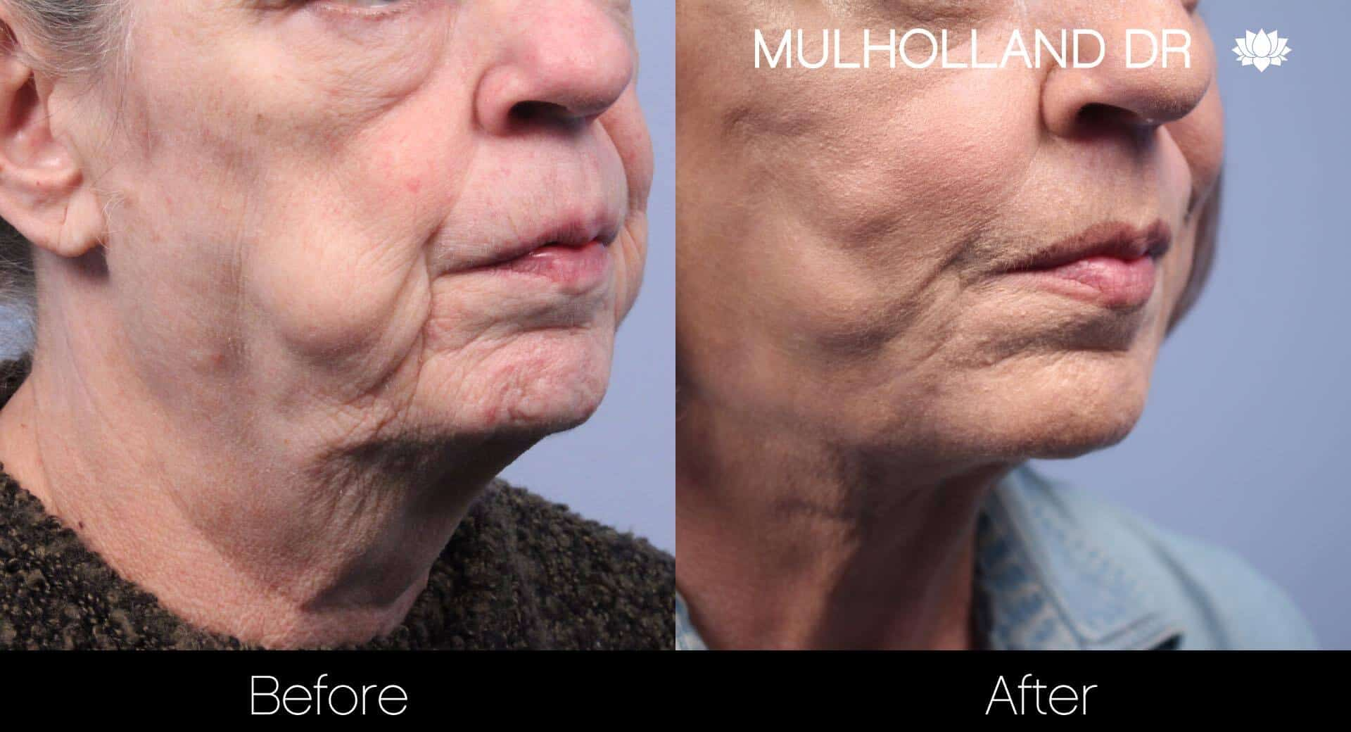Neck Lift - Before and After Gallery - Patient Photo 105