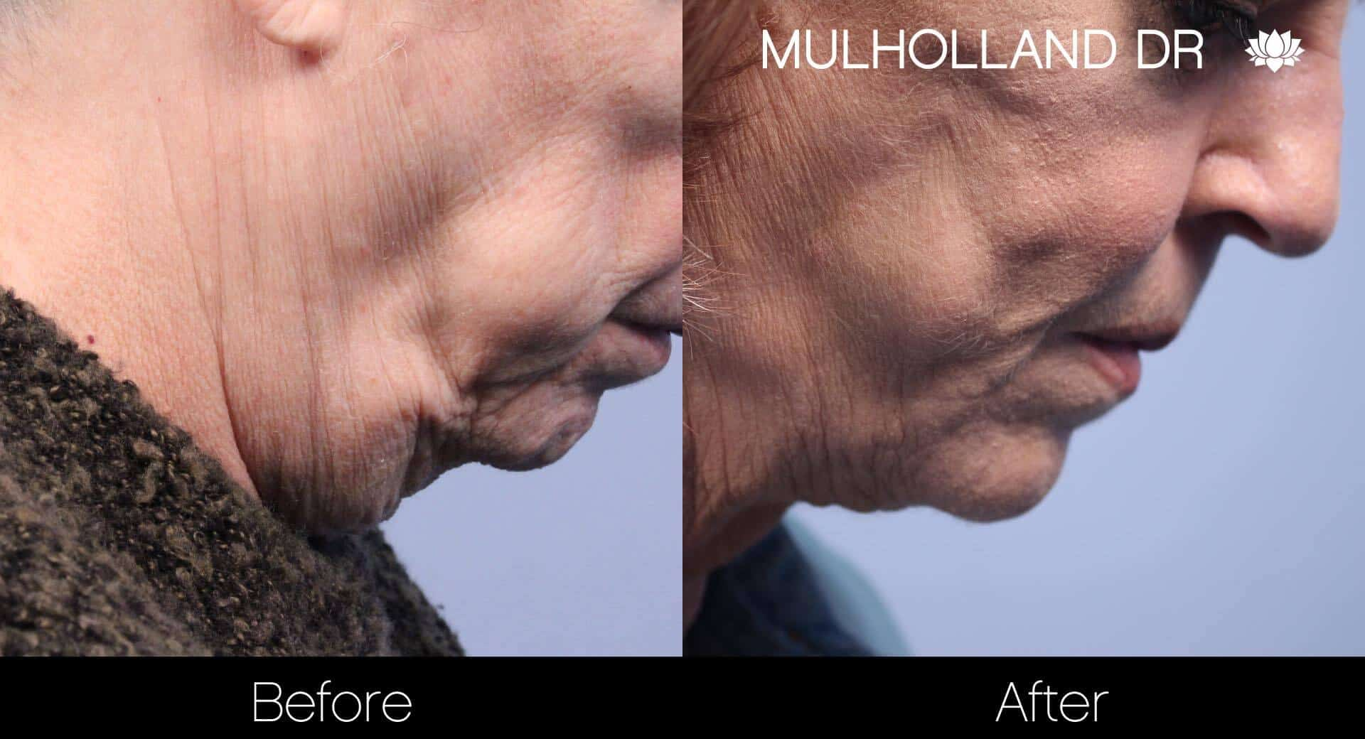 Neck Lift - Before and After Gallery - Patient Photo 108