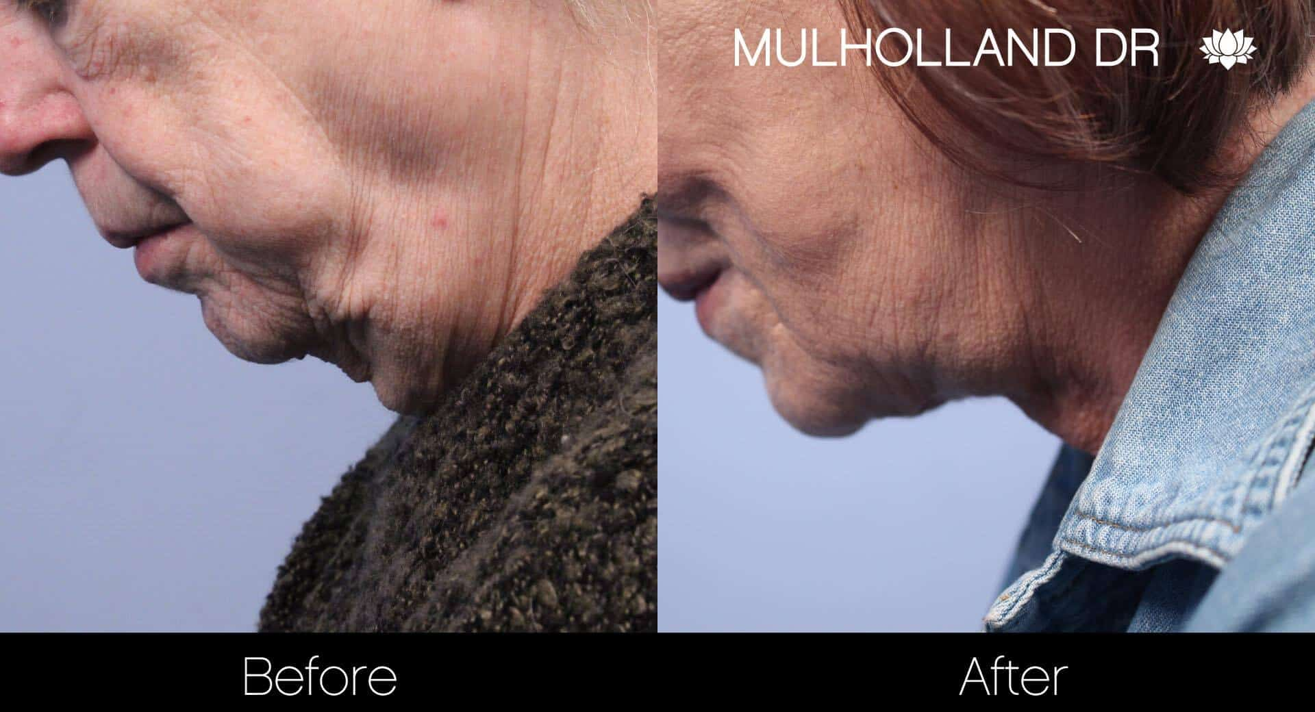 Neck Lift - Before and After Gallery - Patient Photo 110