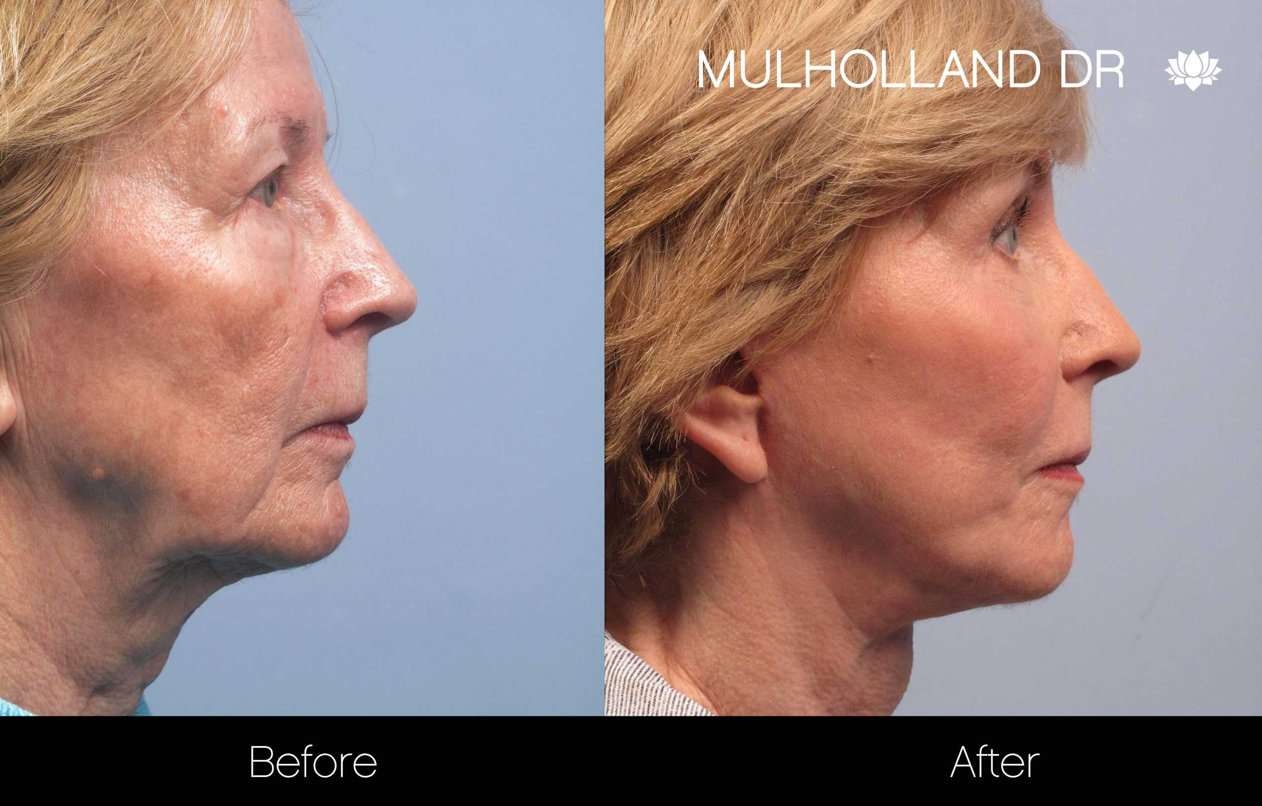 Neck Lift - Before and After Gallery - Patient Photo 111