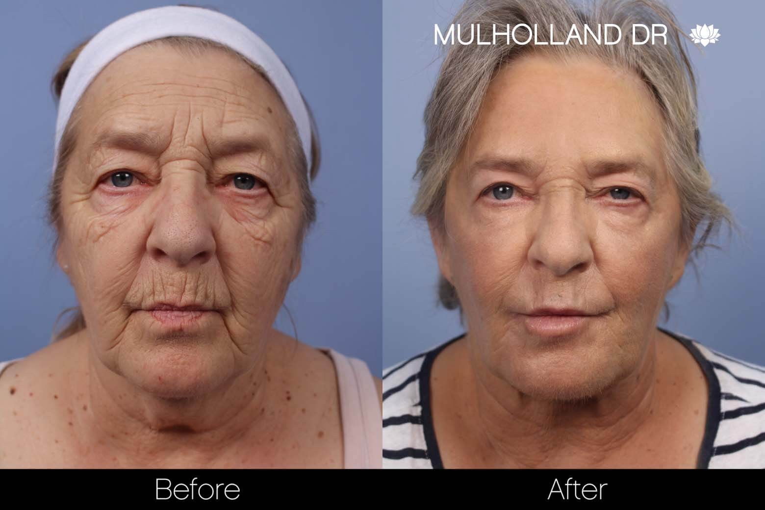 Neck Lift - Before and After Gallery - Patient Photo 115