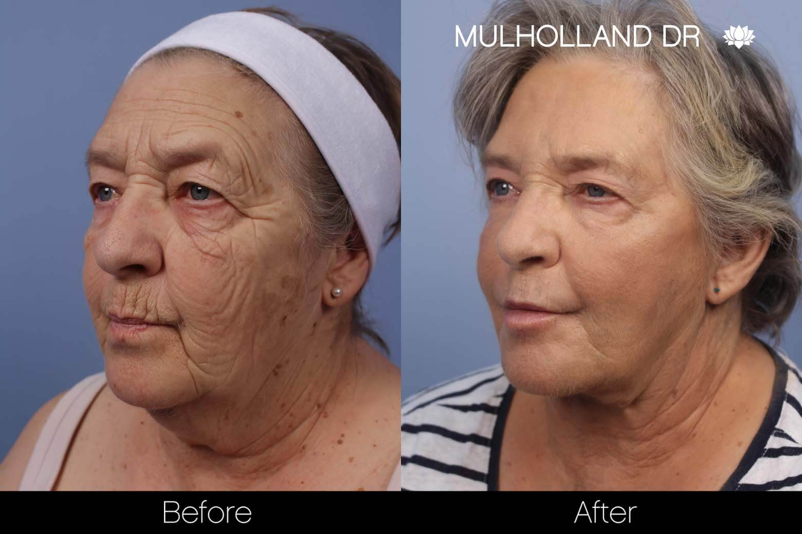 Neck Lift - Before and After Gallery - Patient Photo 116