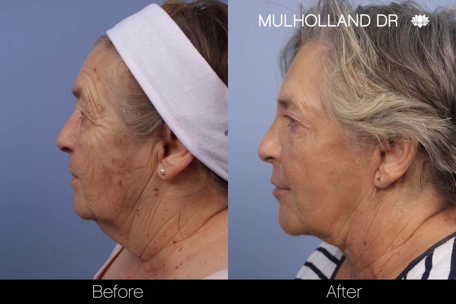 Neck Lift - Before and After Gallery - Patient Photo 117