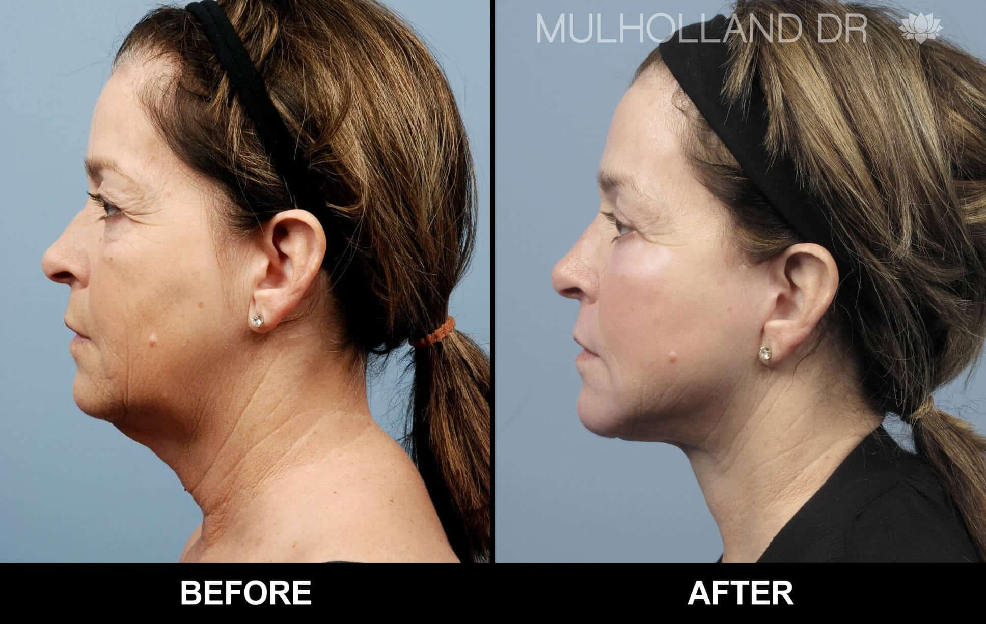 Neck Lift - Before and After Gallery - Patient Photo 12
