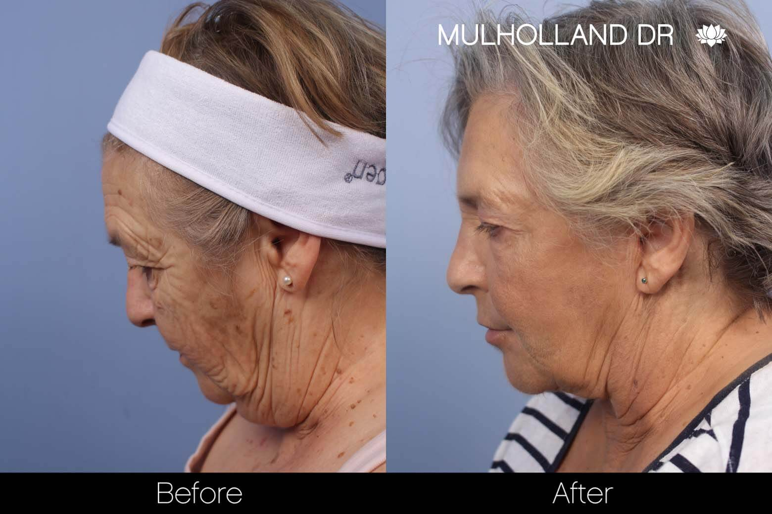Neck Lift - Before and After Gallery - Patient Photo 121