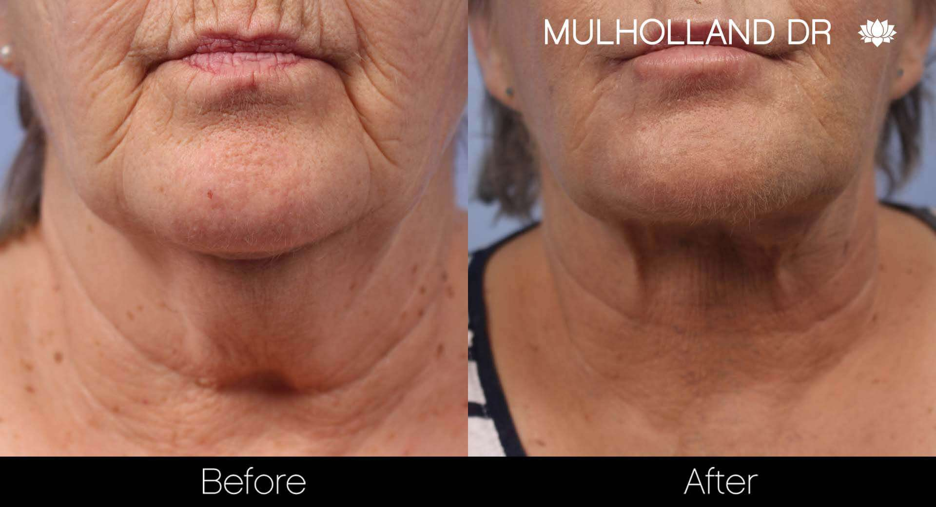 Neck Lift - Before and After Gallery - Patient Photo 122