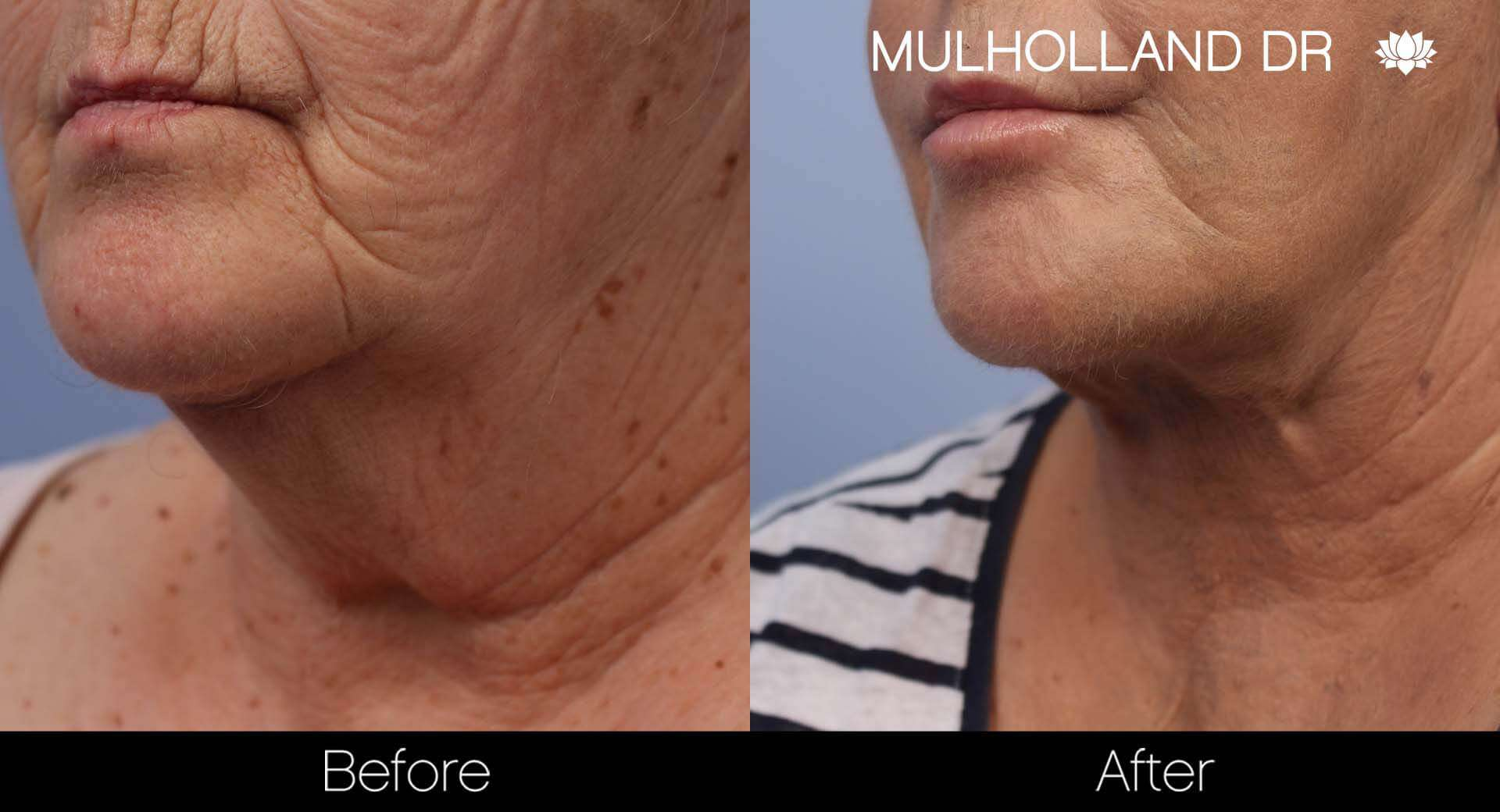 Neck Lift - Before and After Gallery - Patient Photo 123