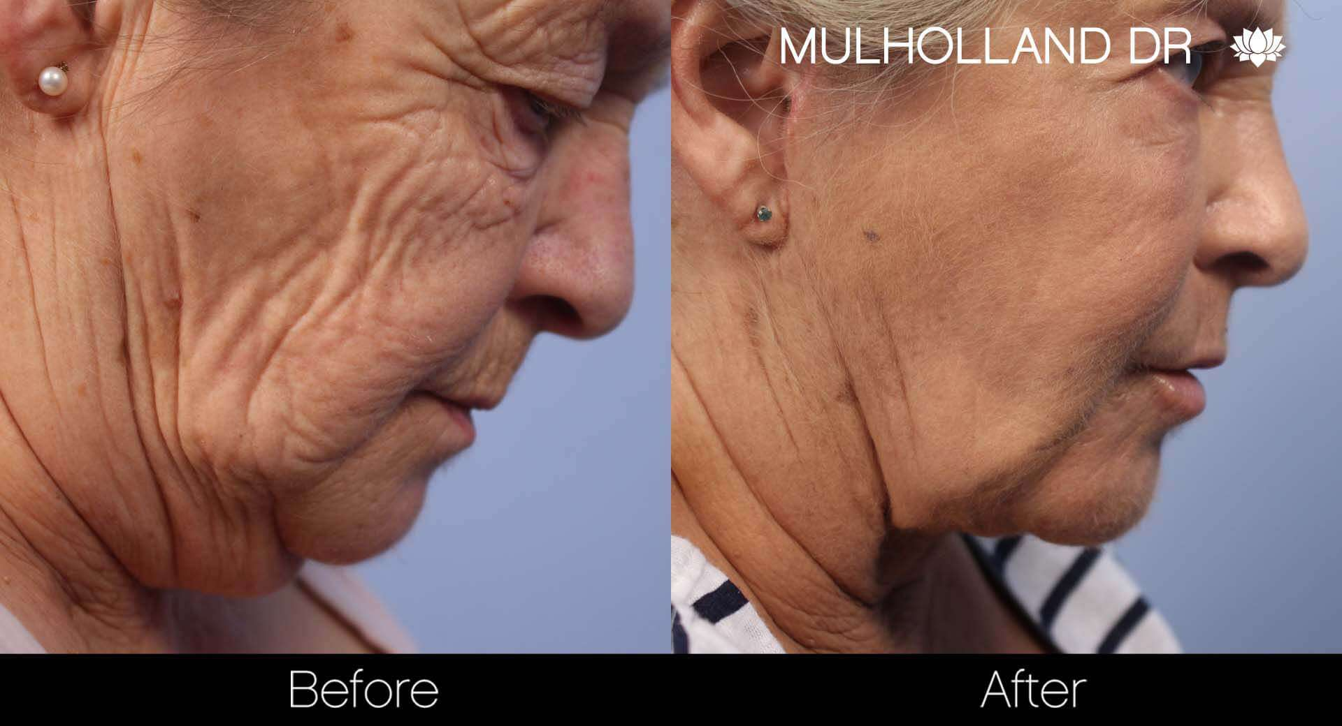 Neck Lift - Before and After Gallery - Patient Photo 124