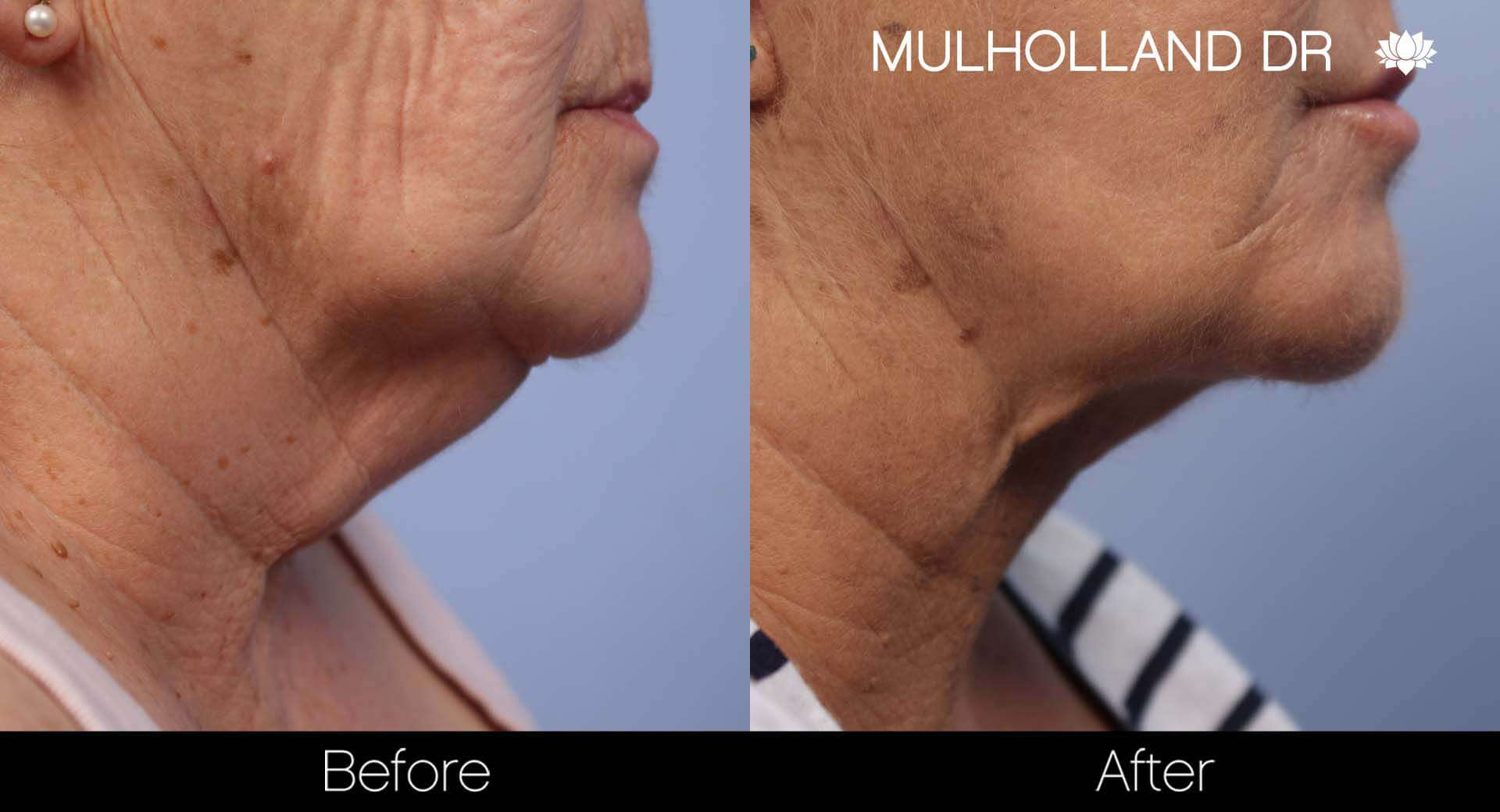 Neck Lift - Before and After Gallery - Patient Photo 125