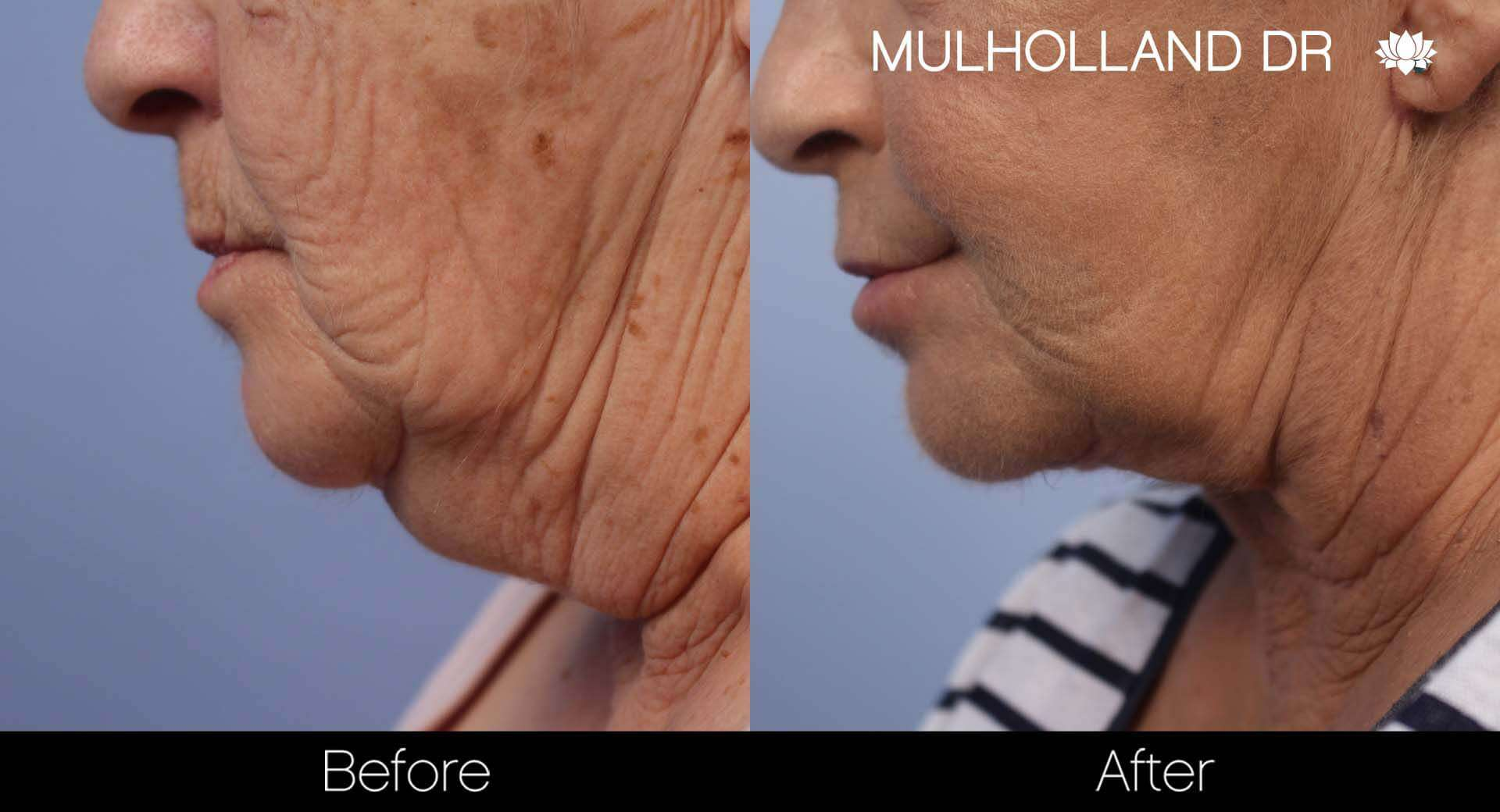 Neck Lift - Before and After Gallery - Patient Photo 126