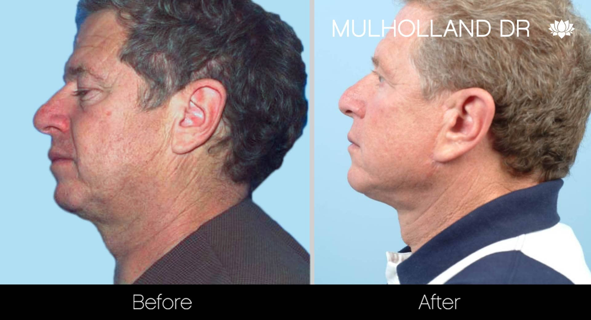 Neck Lift - Before and After Gallery - Patient Photo 128