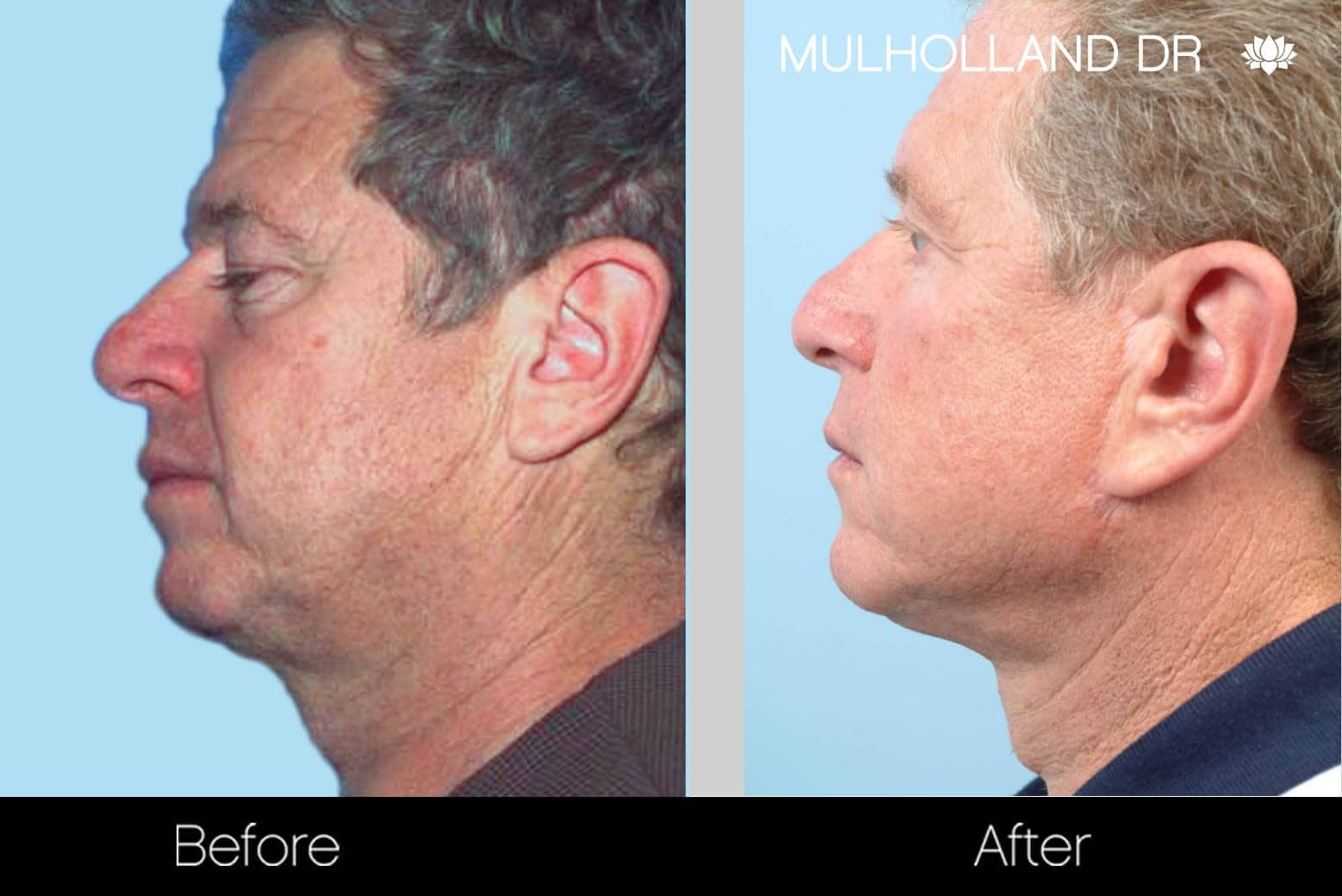 Neck Lift - Before and After Gallery - Patient Photo 129