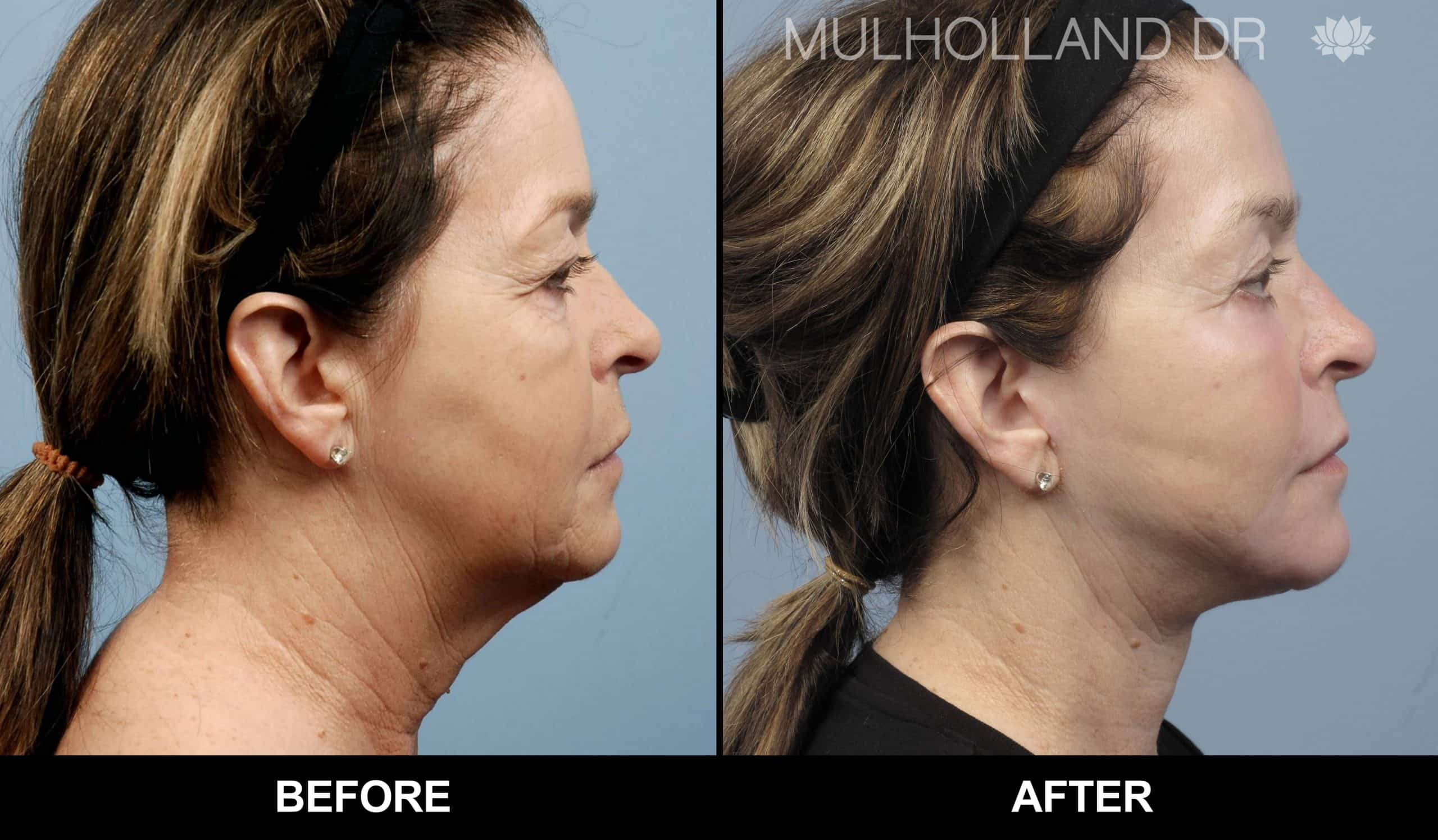 Neck Lift - Before and After Gallery - Patient Photo 13