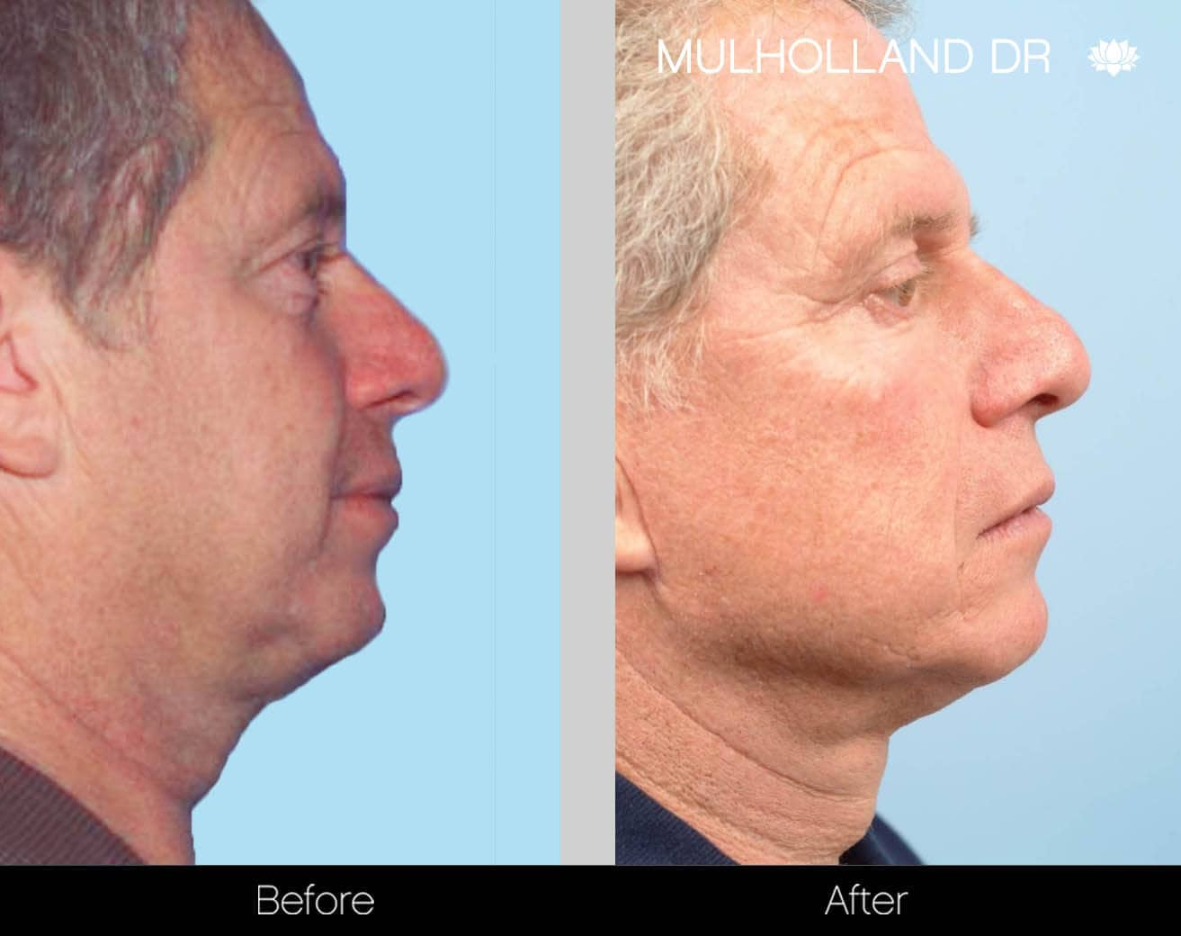 Neck Lift - Before and After Gallery - Patient Photo 130
