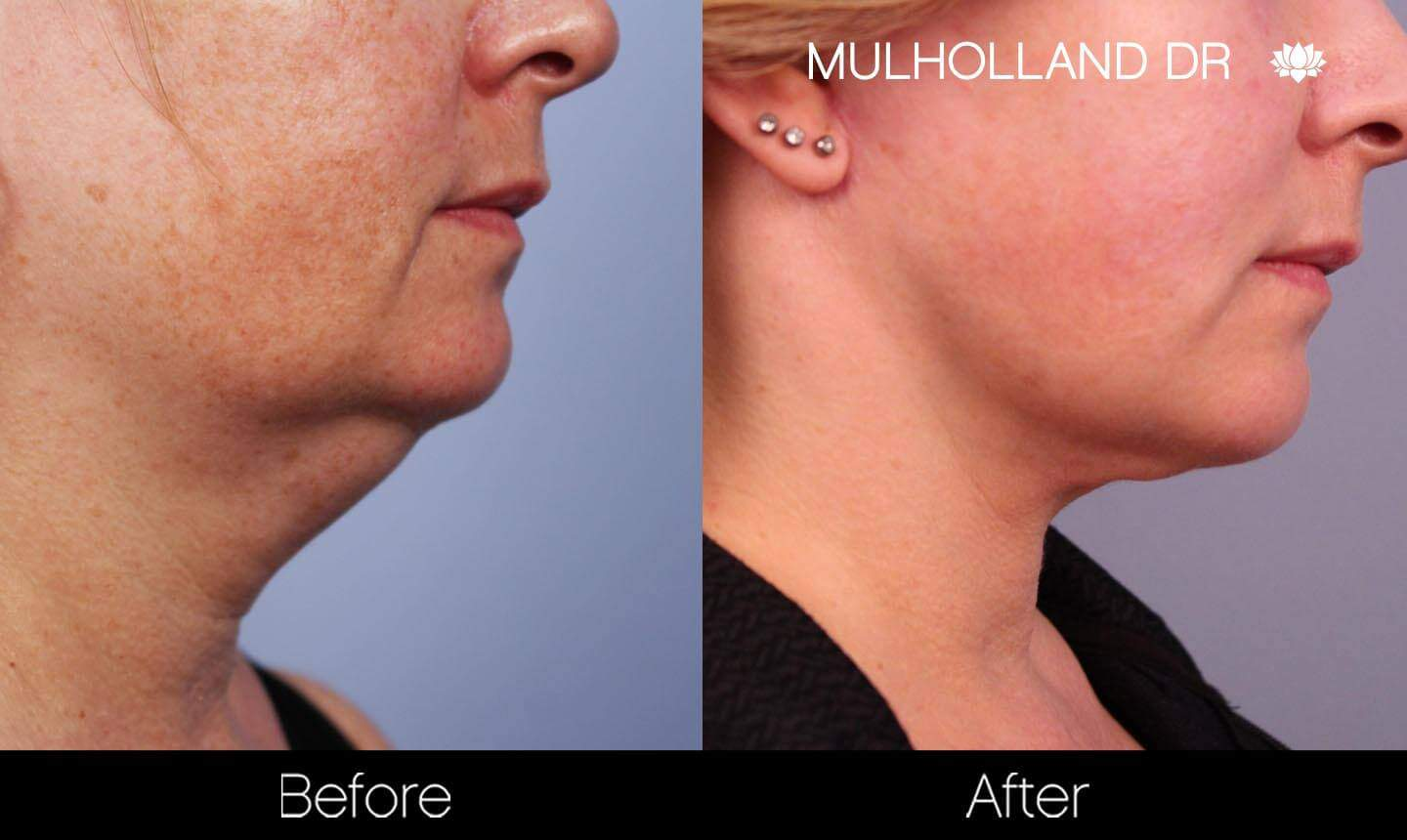 Neck Lift - Before and After Gallery - Patient Photo 134