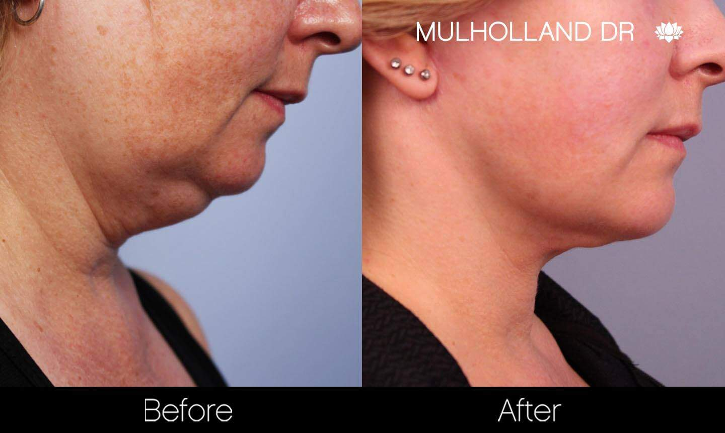Neck Lift - Before and After Gallery - Patient Photo 135