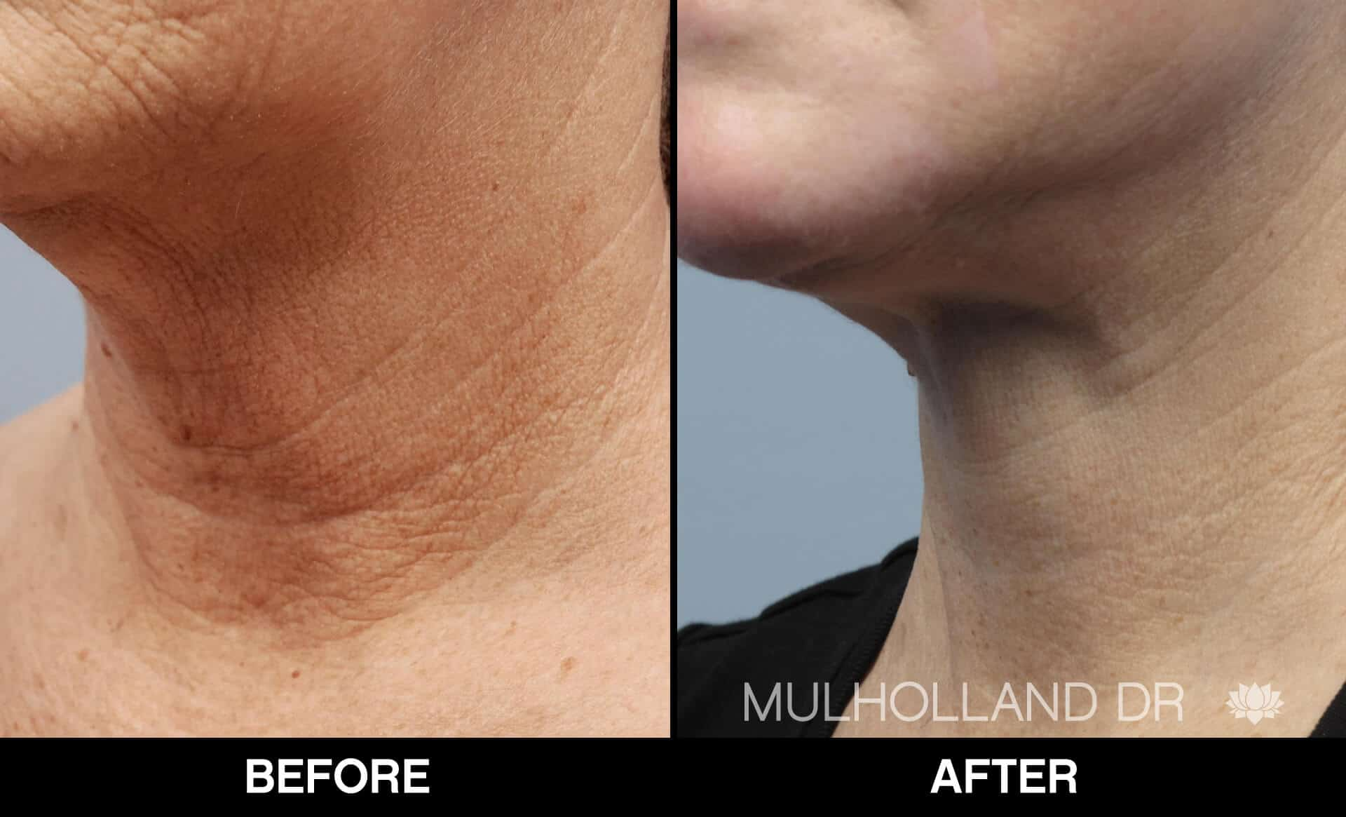 Neck Lift - Before and After Gallery - Patient Photo 14