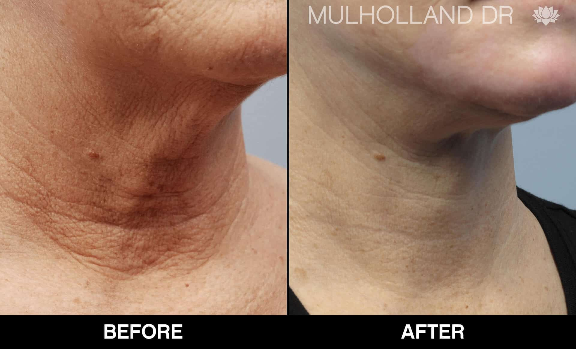 Neck Lift - Before and After Gallery - Patient Photo 15
