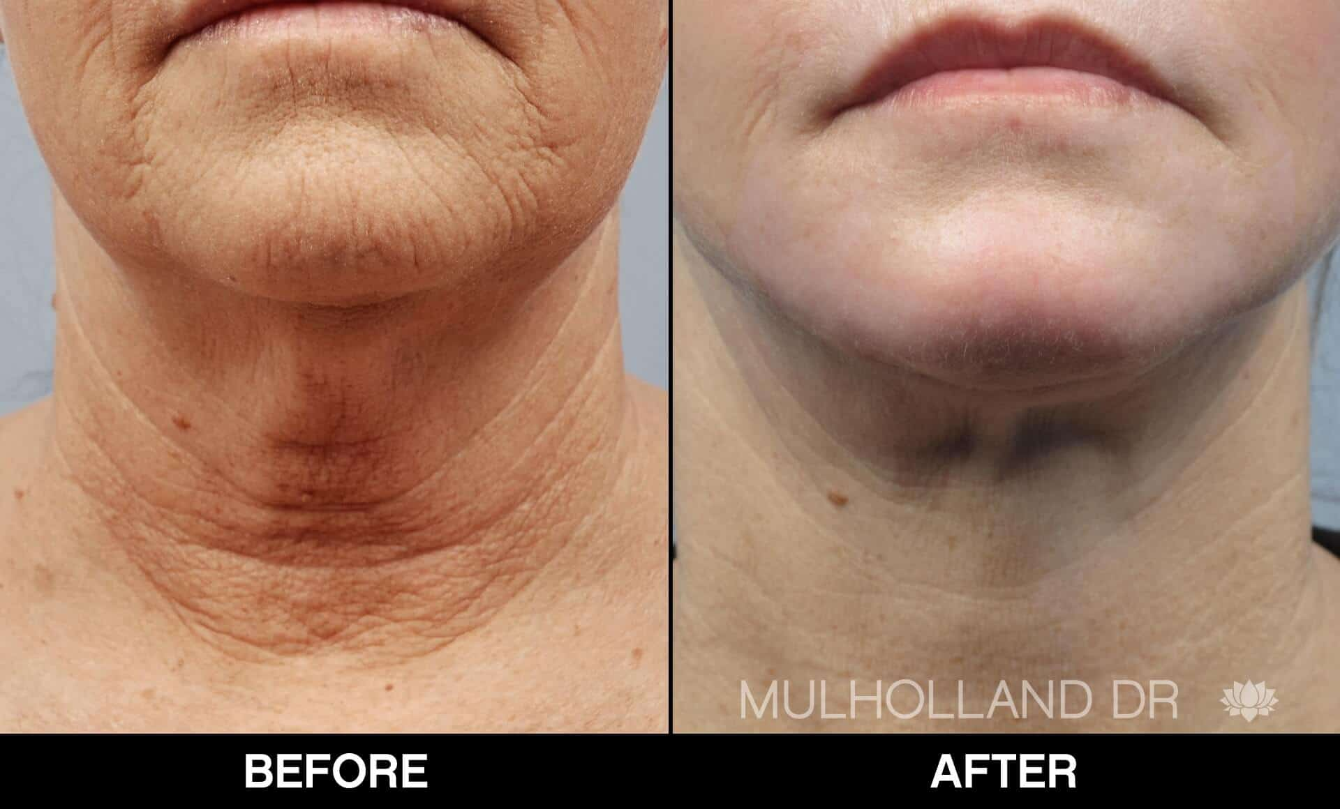 Neck Lift - Before and After Gallery - Patient Photo 16