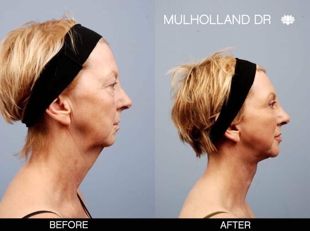 Neck Lift - Before and After Gallery - Patient Photo 2