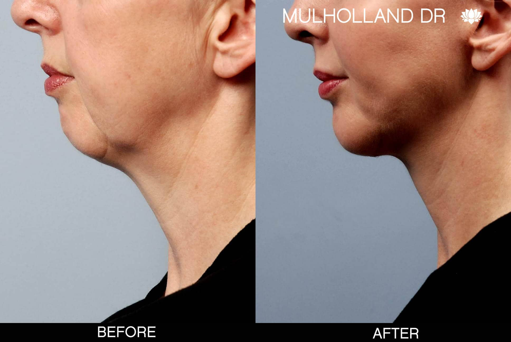 Neck Lift - Before and After Gallery - Patient Photo 22