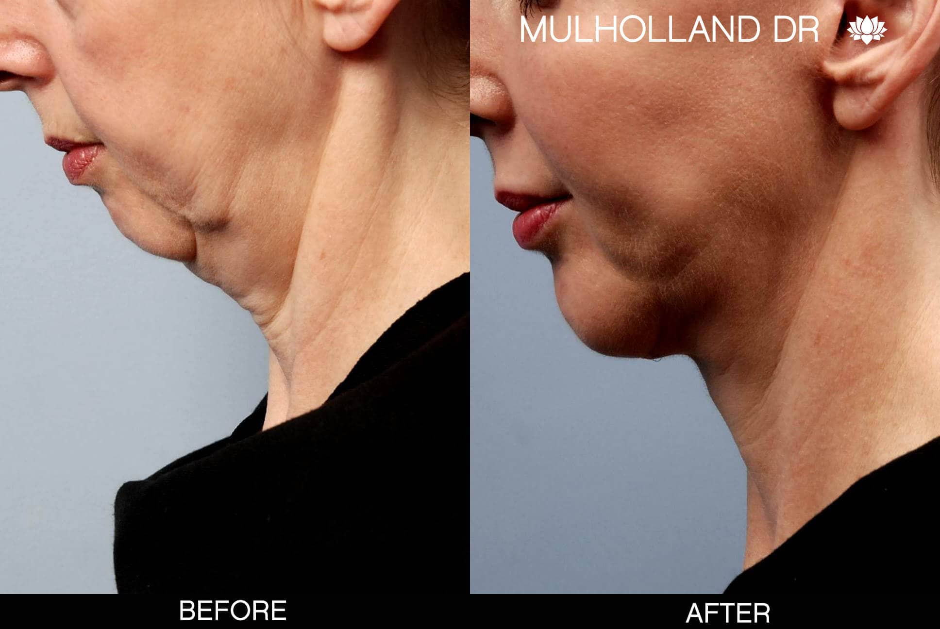 Neck Lift - Before and After Gallery - Patient Photo 23