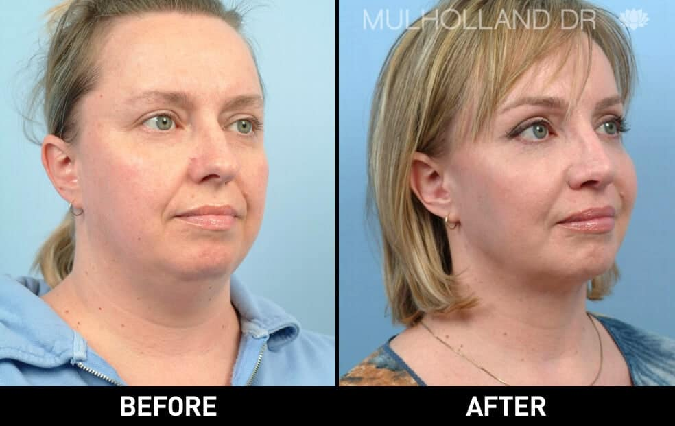 Neck Lift - Before and After Gallery - Patient Photo 28