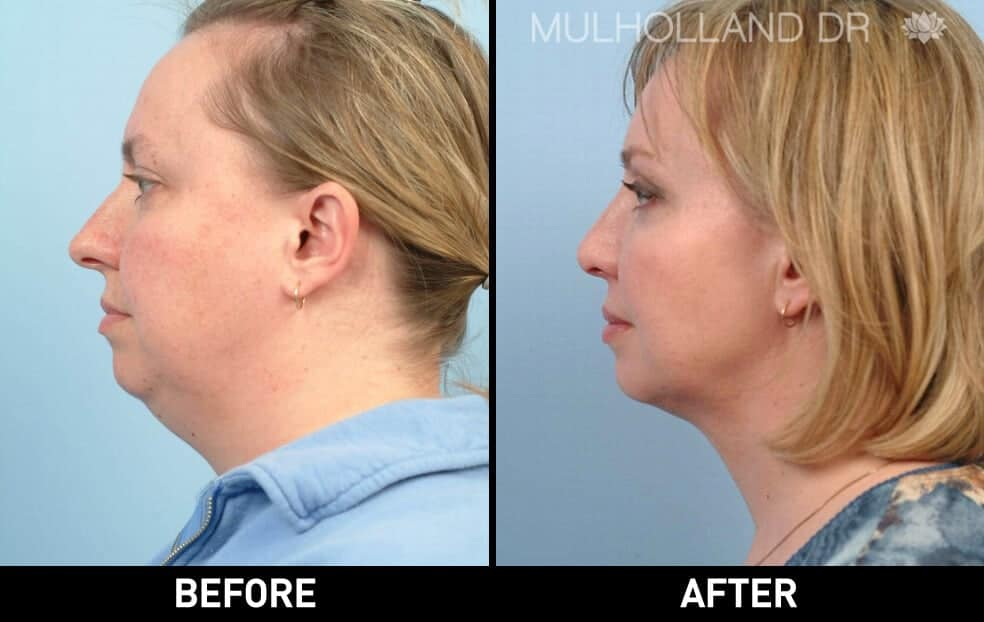 Neck Lift - Before and After Gallery - Patient Photo 29