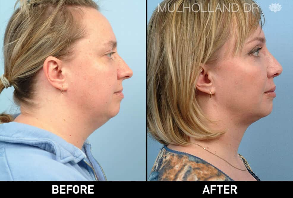 Neck Lift - Before and After Gallery - Patient Photo 30