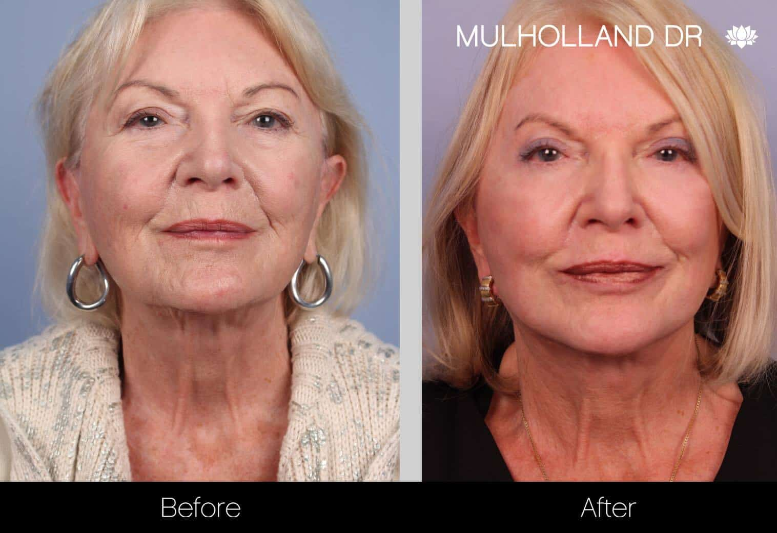 Neck Lift - Before and After Gallery - Patient Photo 32