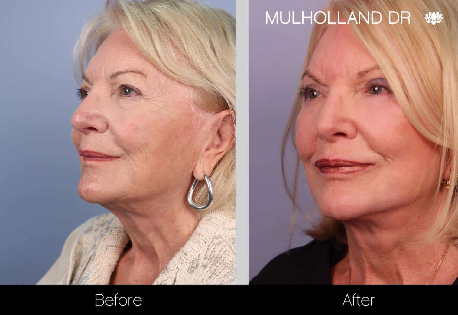 Neck Lift - Before and After Gallery - Patient Photo 33