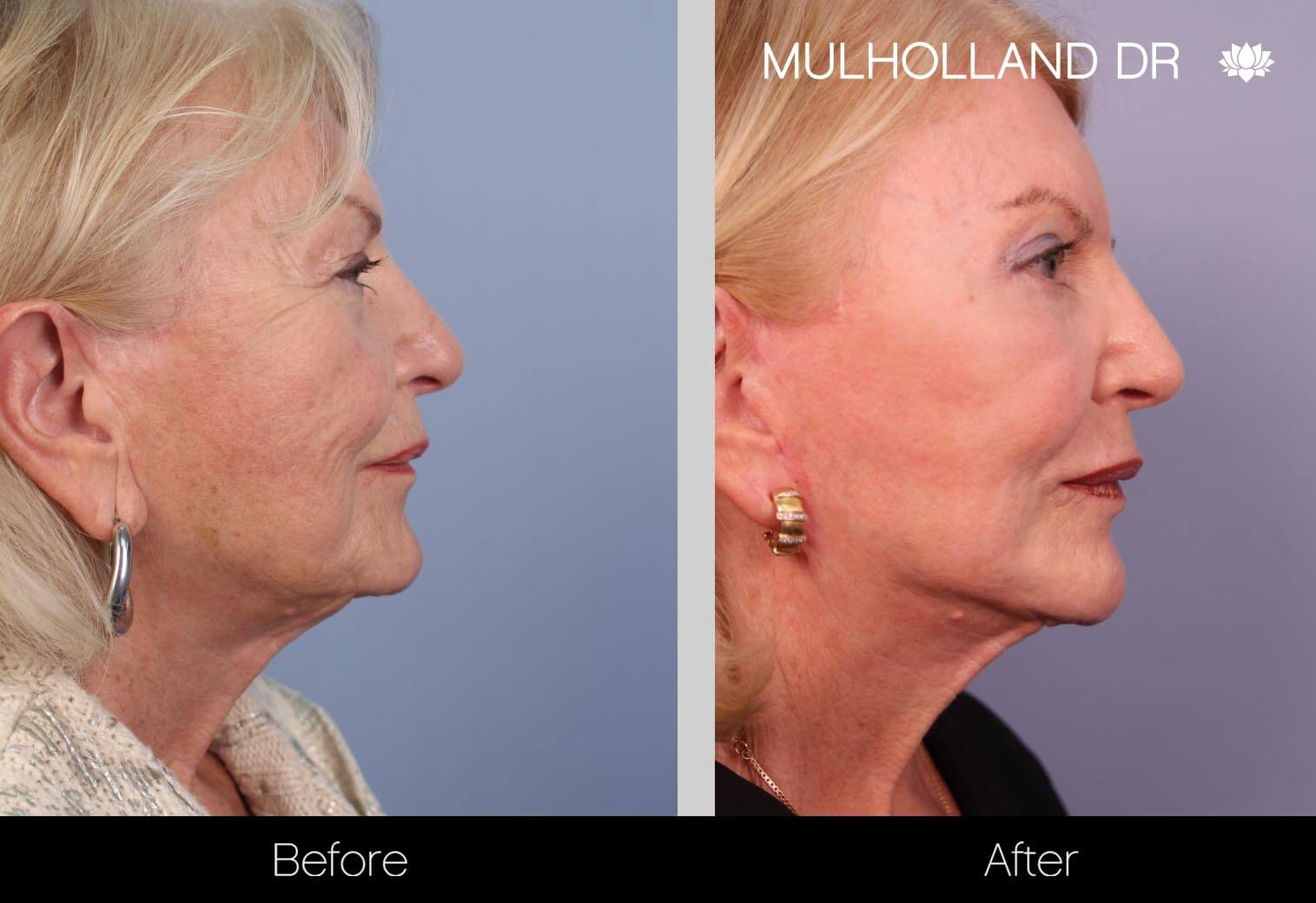 Neck Lift - Before and After Gallery - Patient Photo 34