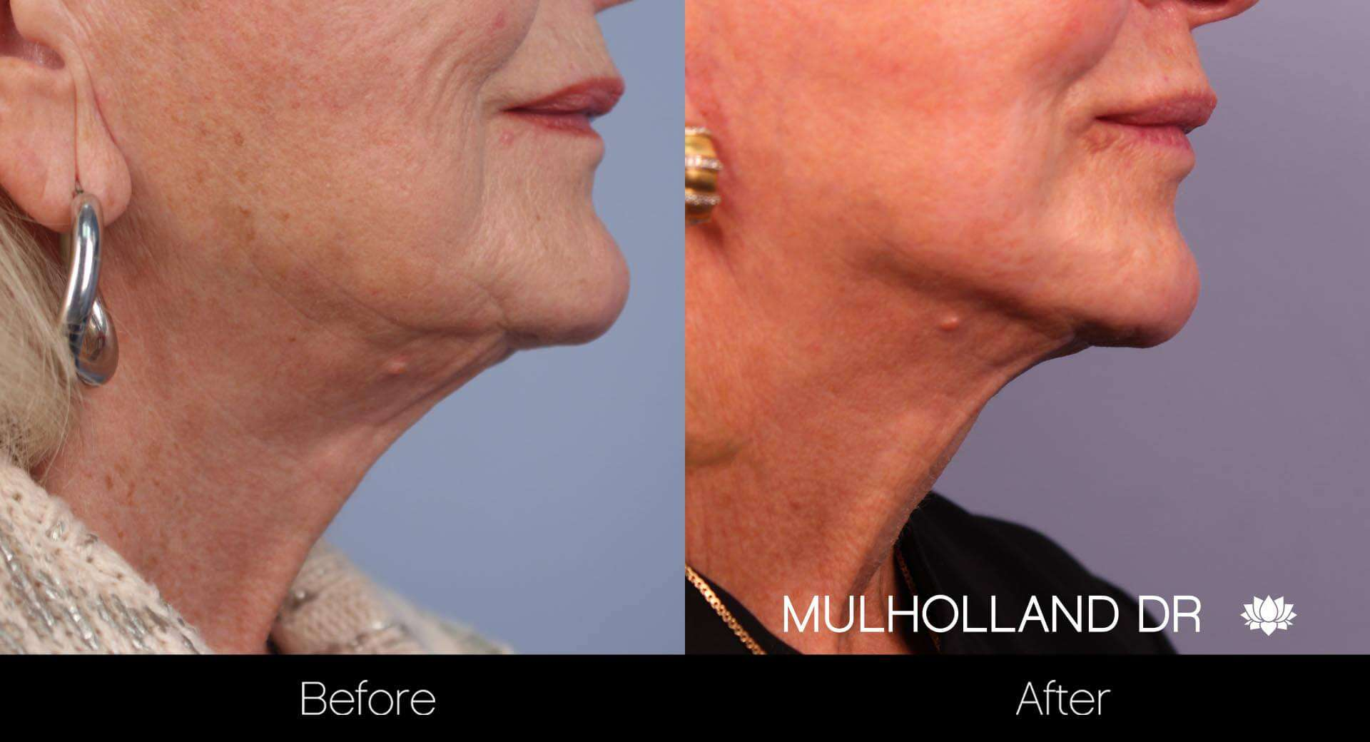 Neck Lift - Before and After Gallery - Patient Photo 35