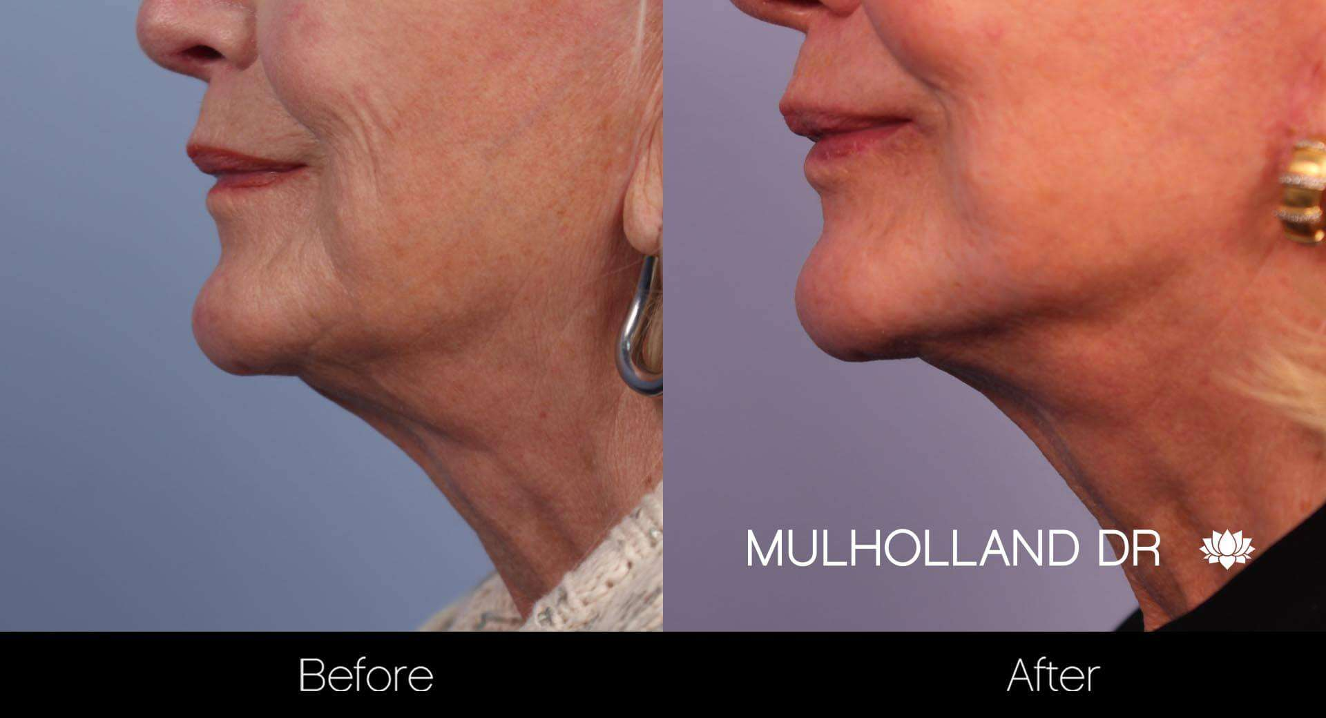 Neck Lift - Before and After Gallery - Patient Photo 36