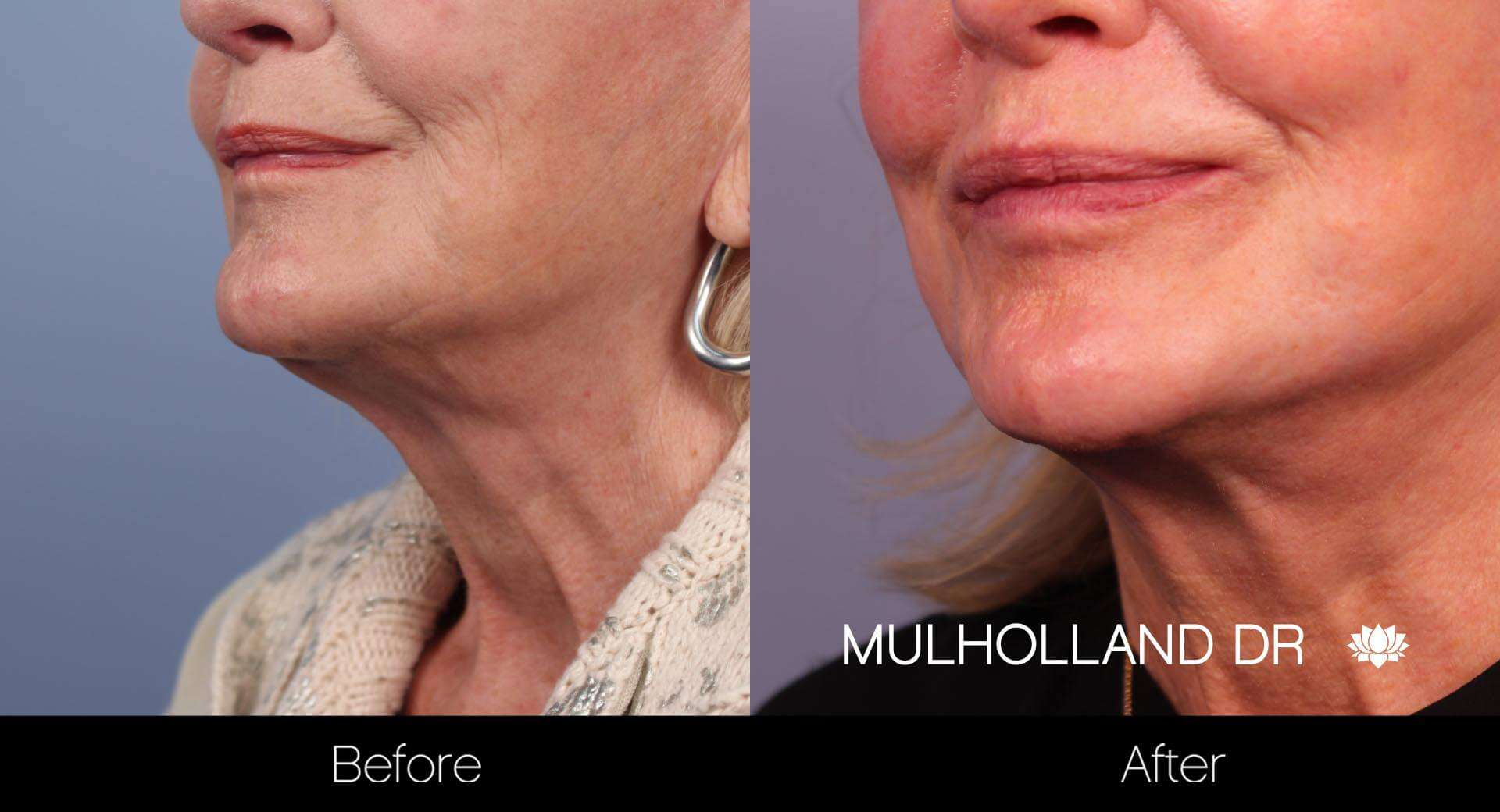 Neck Lift - Before and After Gallery - Patient Photo 37
