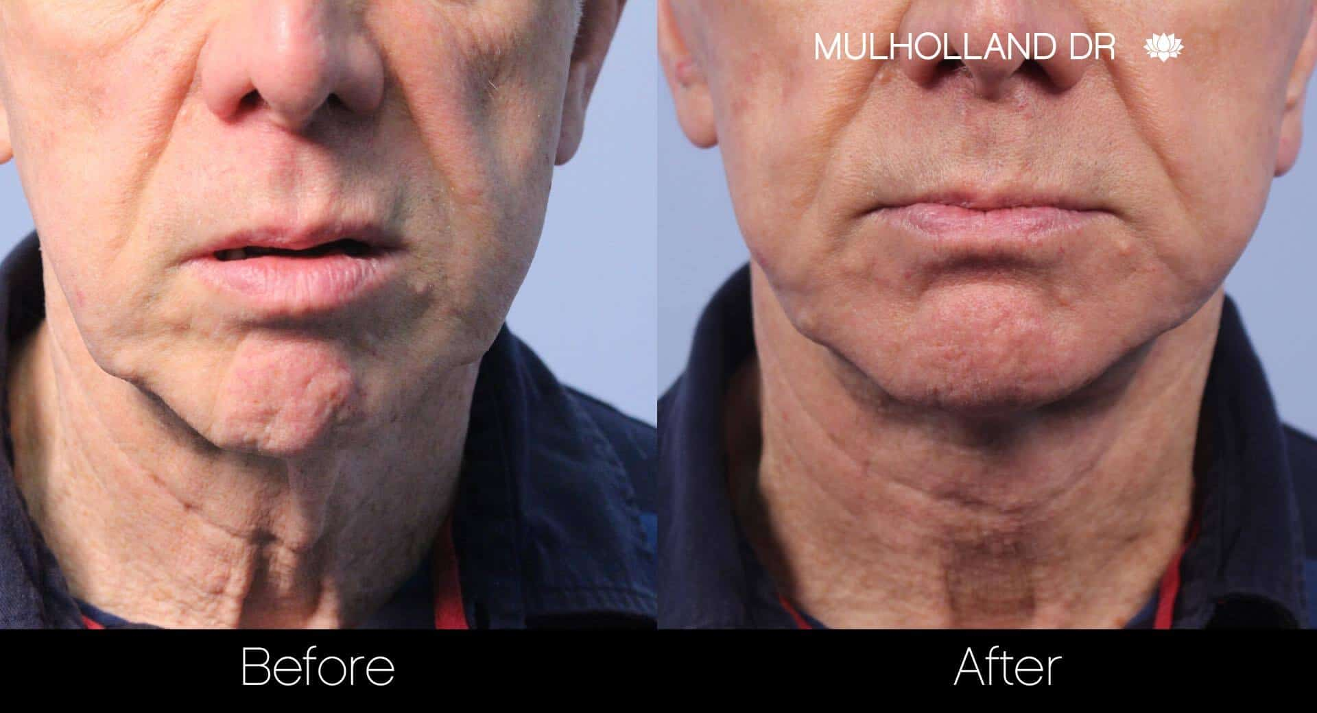 Neck Lift - Before and After Gallery - Patient Photo 38