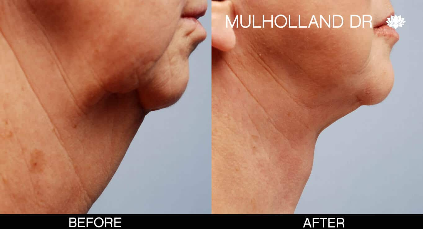 Neck Lift - Before and After Gallery - Patient Photo 4