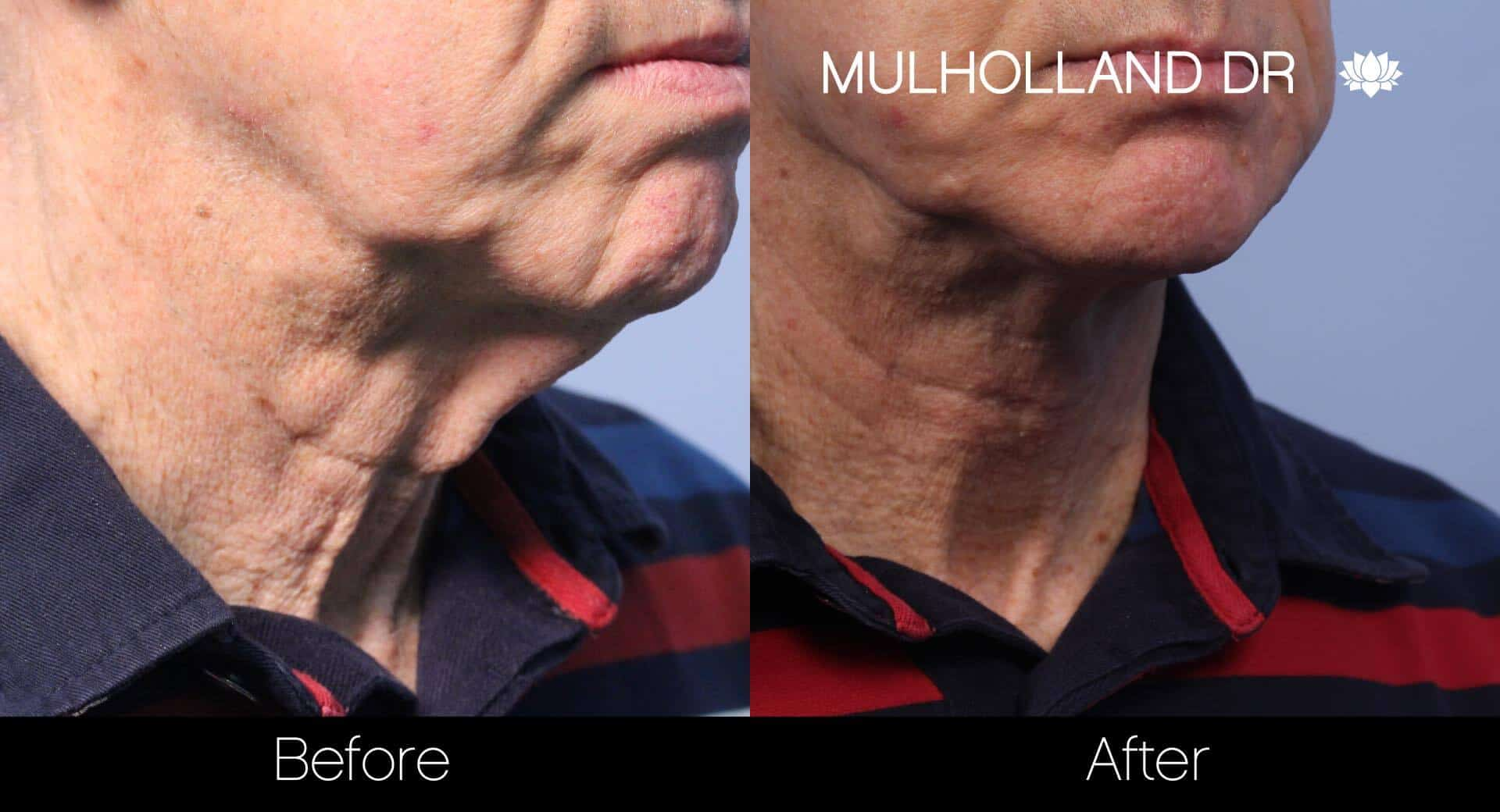 Neck Lift - Before and After Gallery - Patient Photo 41
