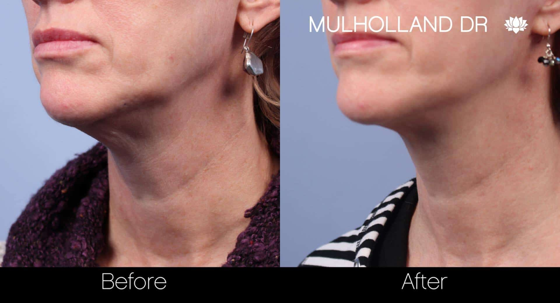 Neck Lift - Before and After Gallery - Patient Photo 43