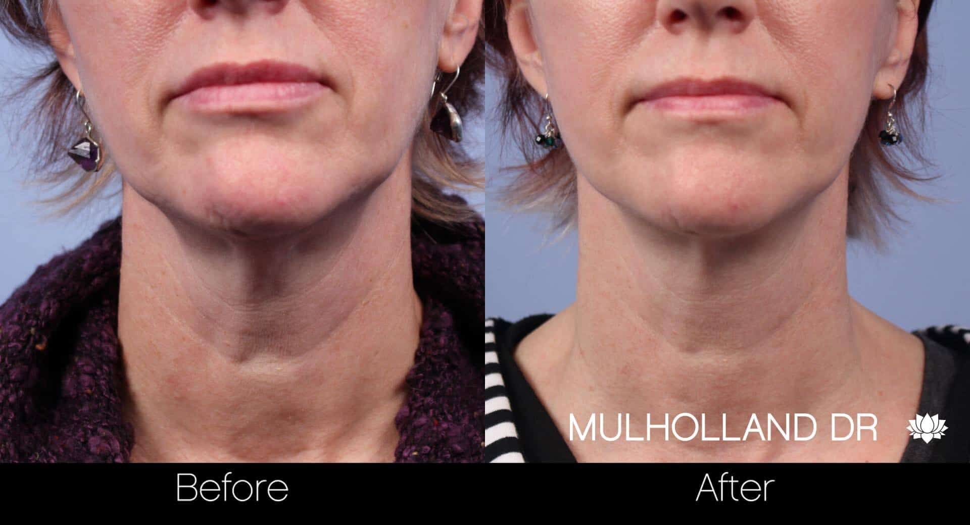 Neck Lift - Before and After Gallery - Patient Photo 44