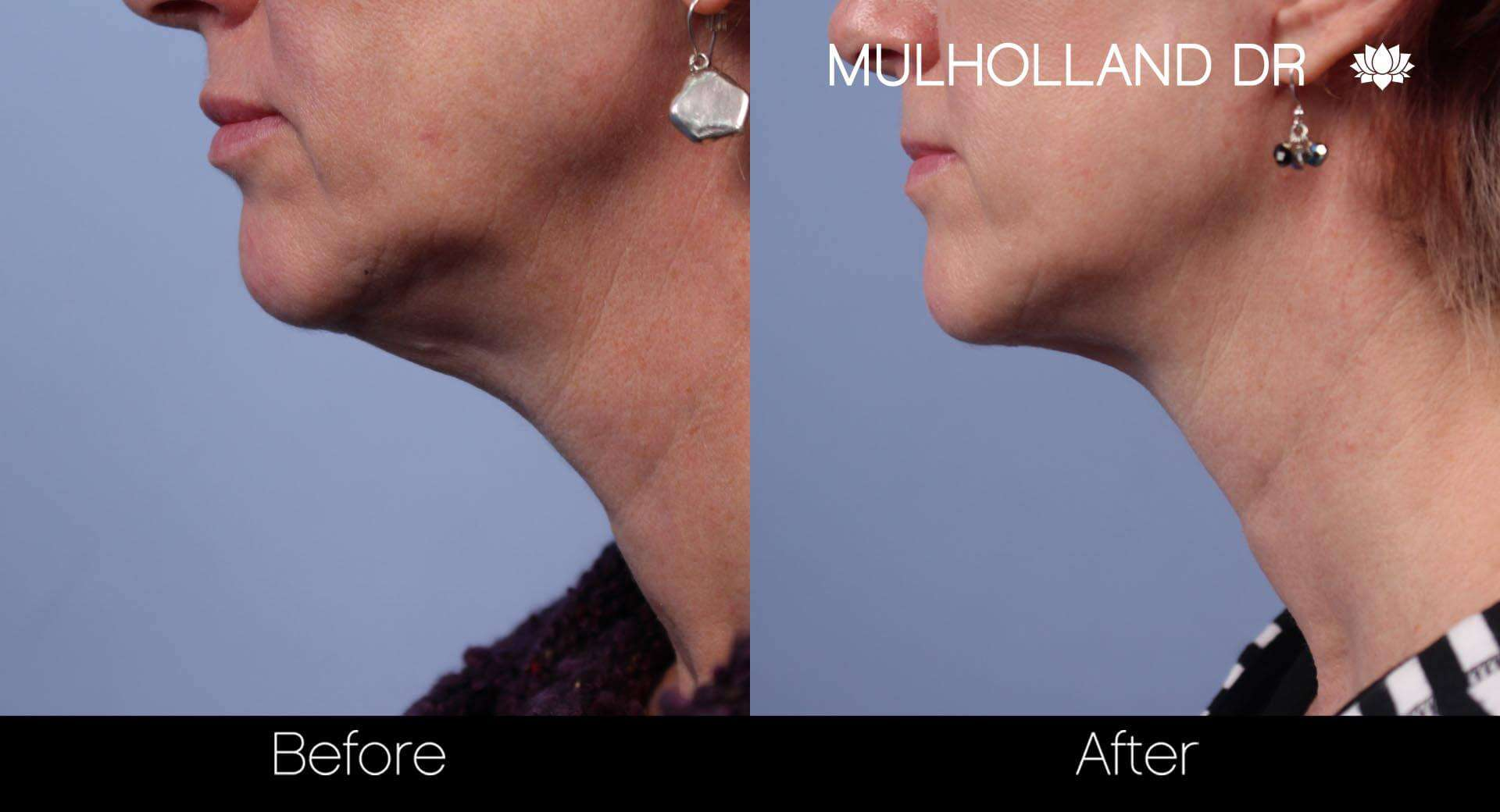 Neck Lift - Before and After Gallery - Patient Photo 45
