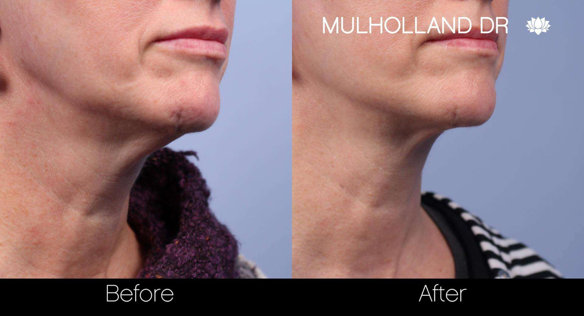 Neck Lift - Before and After Gallery - Patient Photo 46