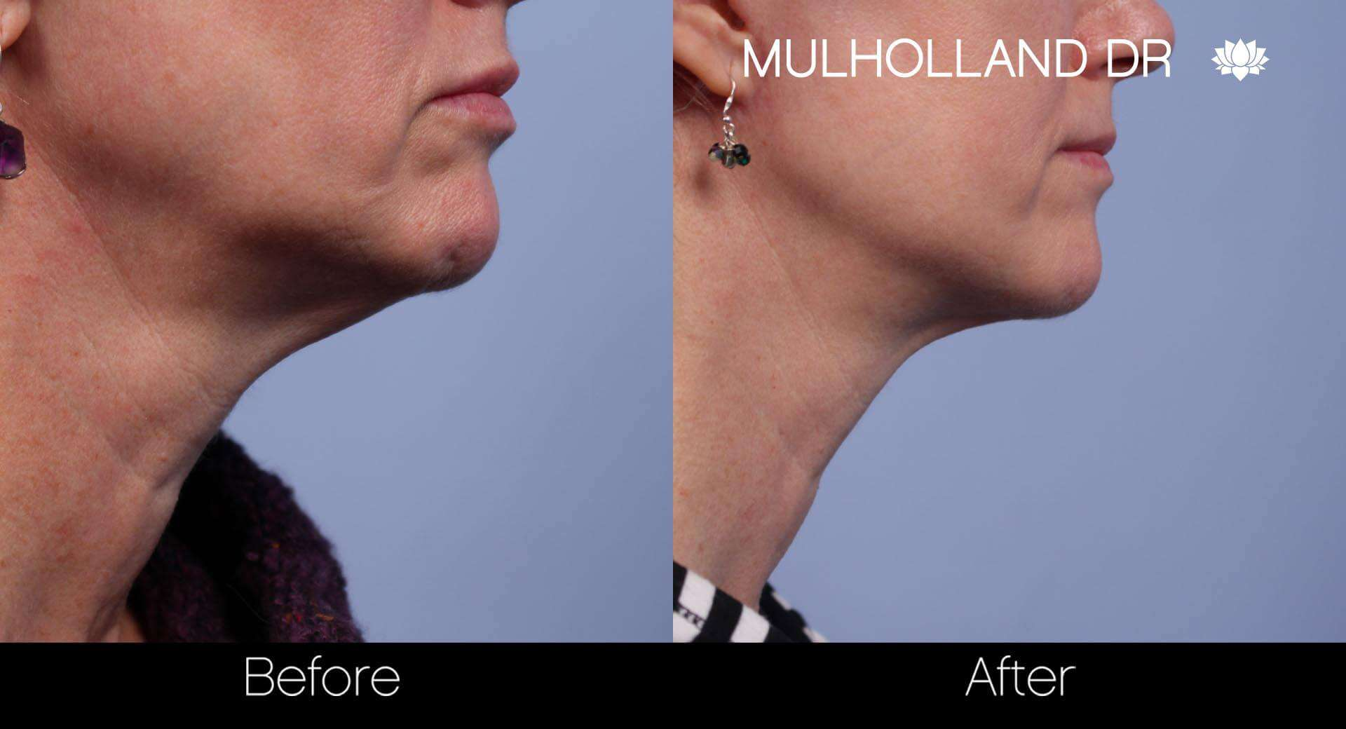 Neck Lift - Before and After Gallery - Patient Photo 47