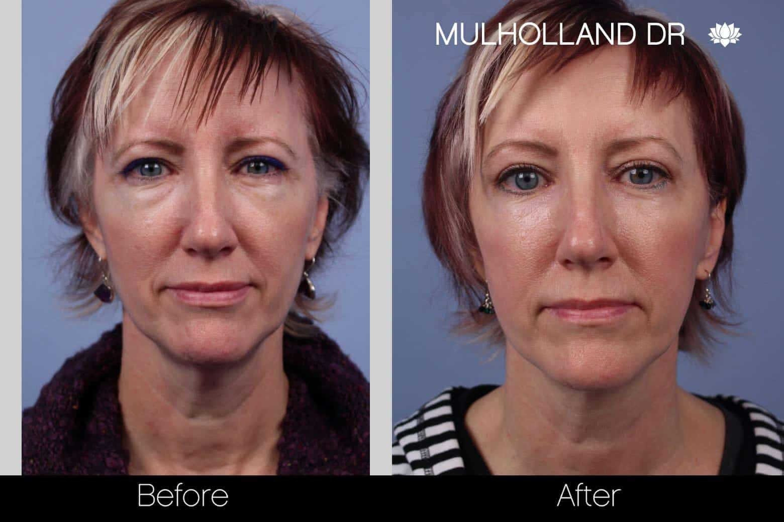 Neck Lift - Before and After Gallery - Patient Photo 48